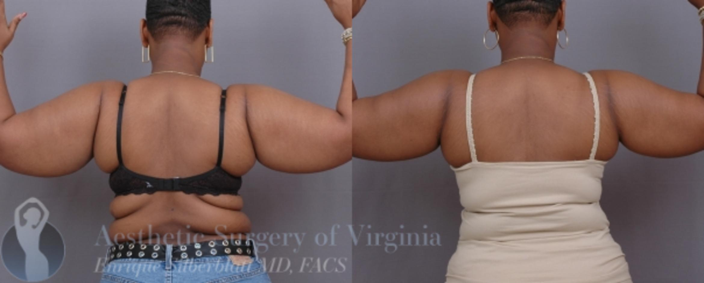 Arm Lift Surgery Case 31 Before & After View #1 | Roanoke, VA | Aesthetic Surgery of Virginia: Enrique Silberblatt, MD