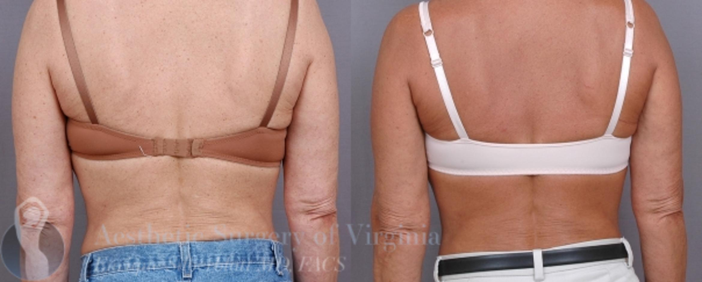 Arm Lift Surgery Case 32 Before & After View #1 | Roanoke, VA | Aesthetic Surgery of Virginia: Enrique Silberblatt, MD