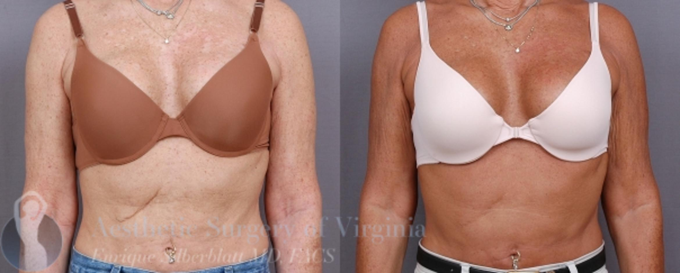 Arm Lift Surgery Case 32 Before & After View #2 | Roanoke, VA | Aesthetic Surgery of Virginia: Enrique Silberblatt, MD