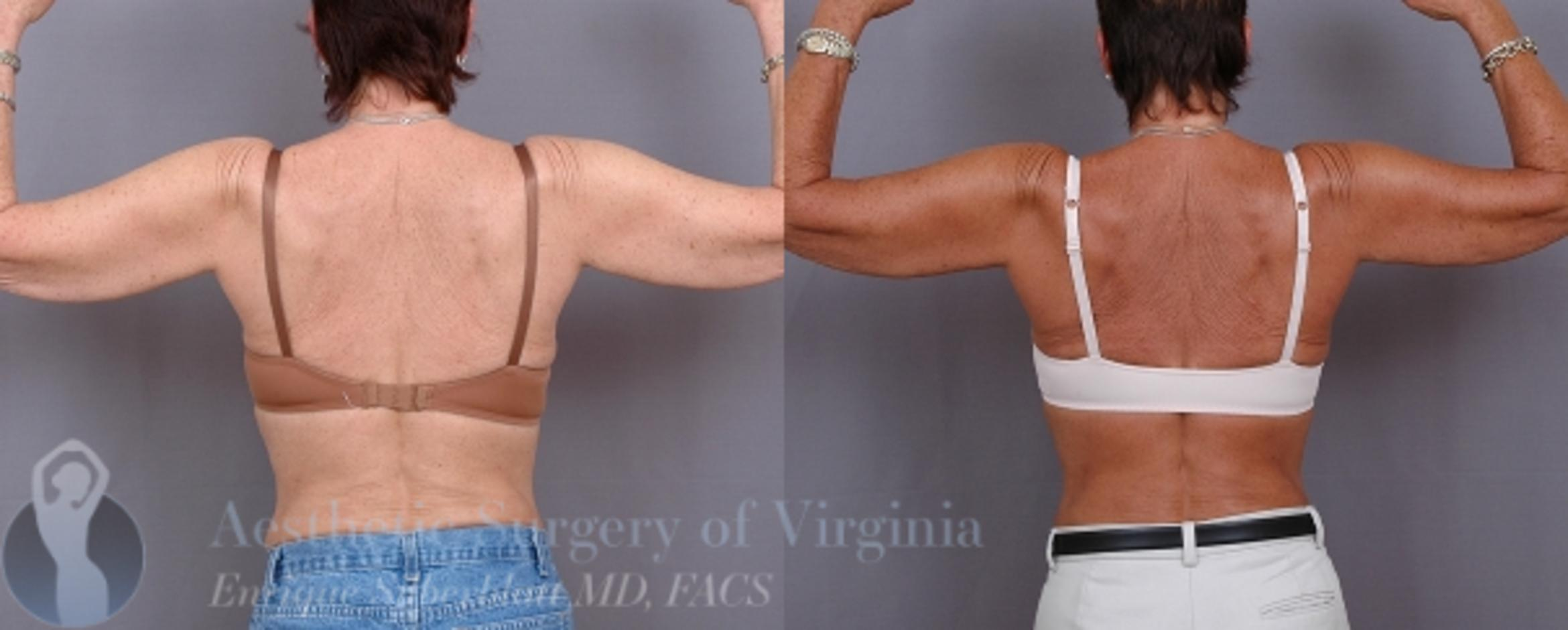 Arm Lift Surgery Case 32 Before & After View #3 | Roanoke, VA | Aesthetic Surgery of Virginia: Enrique Silberblatt, MD