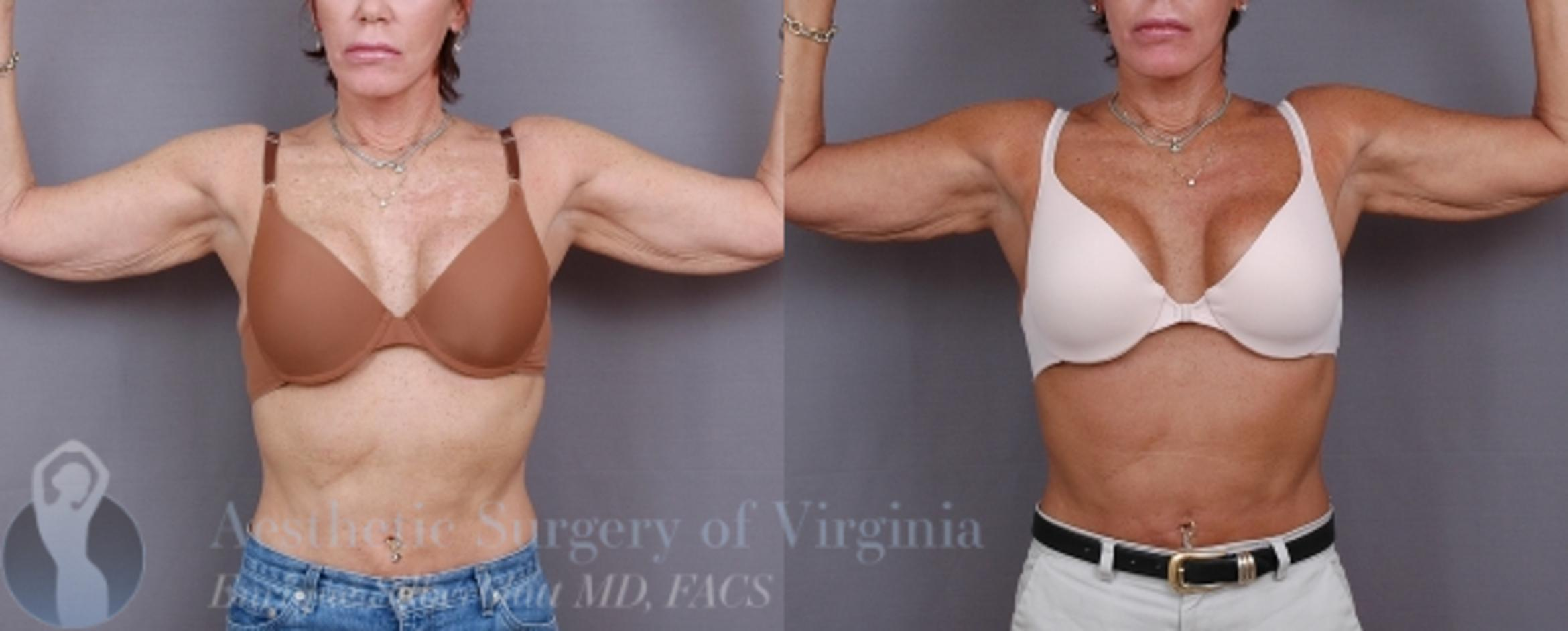 Arm Lift Surgery Case 32 Before & After View #4 | Roanoke, VA | Aesthetic Surgery of Virginia: Enrique Silberblatt, MD