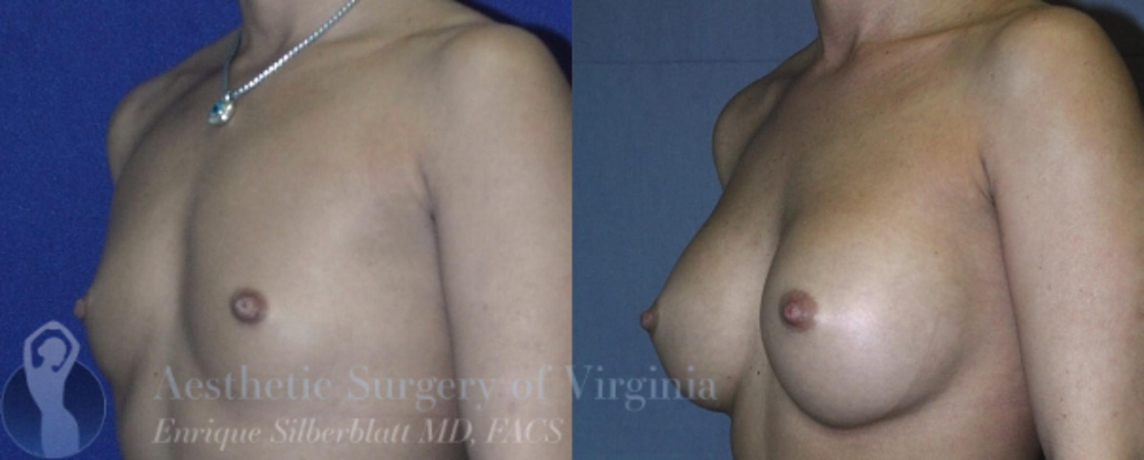 Breast Augmentation Case 11 Before & After View #2 | Roanoke, VA | Aesthetic Surgery of Virginia: Enrique Silberblatt, MD