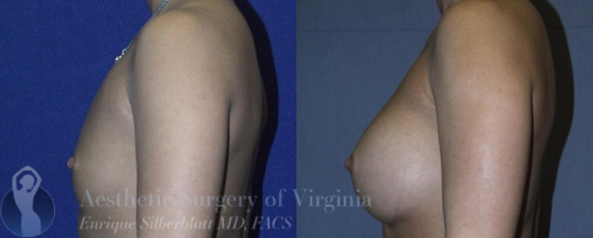 Breast Augmentation Case 11 Before & After View #3 | Roanoke, VA | Aesthetic Surgery of Virginia: Enrique Silberblatt, MD