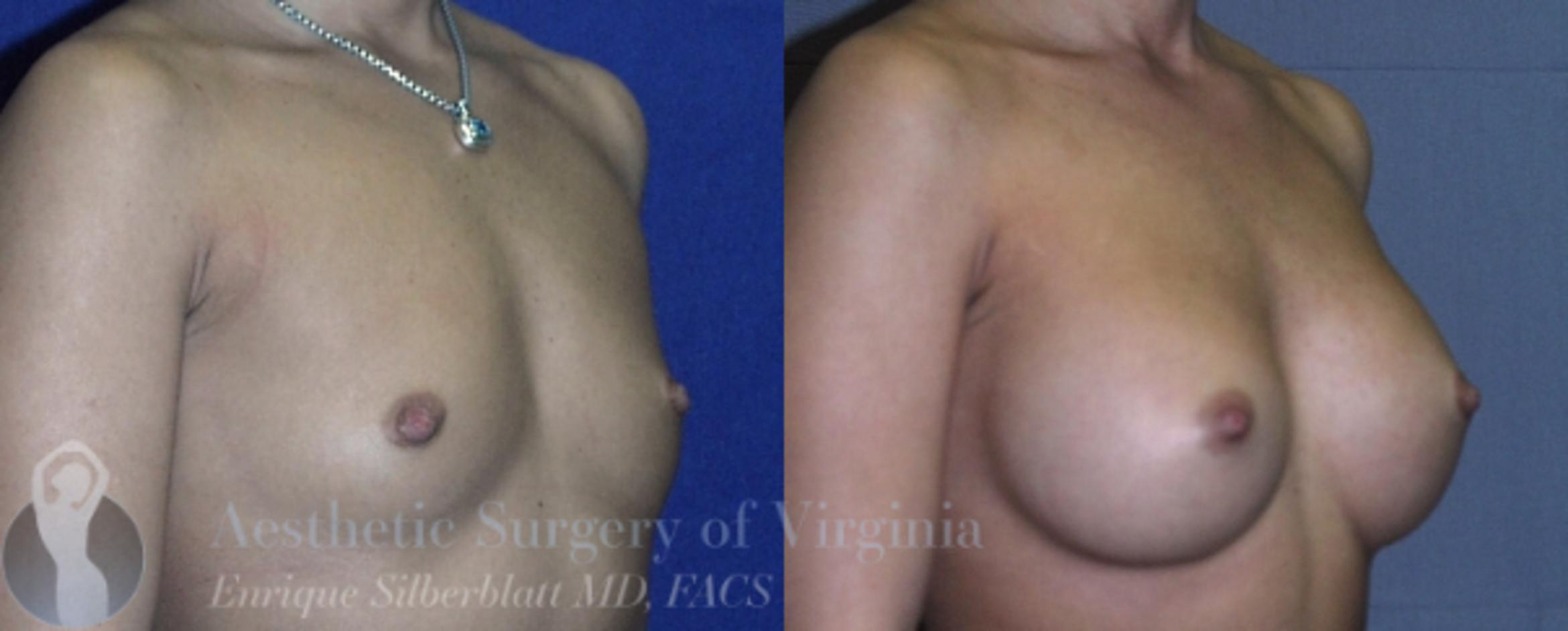 Breast Augmentation Case 11 Before & After View #4 | Roanoke, VA | Aesthetic Surgery of Virginia: Enrique Silberblatt, MD