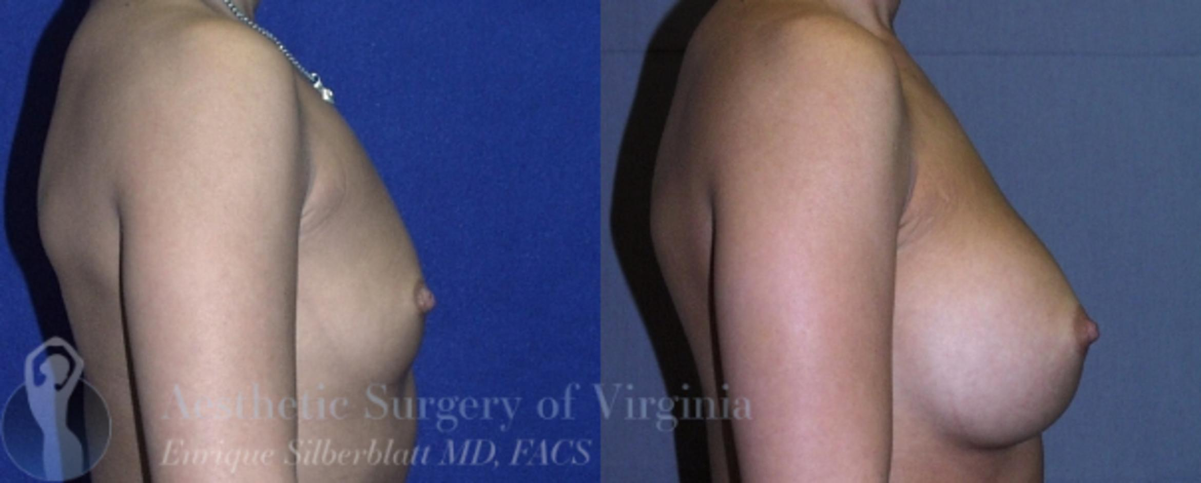 Breast Augmentation Case 11 Before & After View #5 | Roanoke, VA | Aesthetic Surgery of Virginia: Enrique Silberblatt, MD