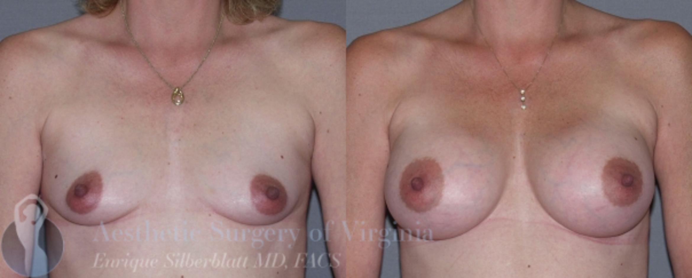 Breast Augmentation Case 12 Before & After View #1 | Roanoke, VA | Aesthetic Surgery of Virginia: Enrique Silberblatt, MD