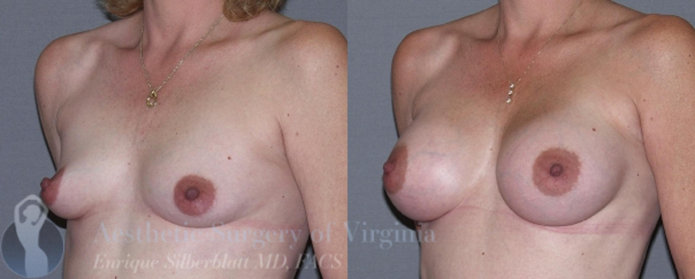 Breast Augmentation Case 12 Before & After View #2 | Roanoke, VA | Aesthetic Surgery of Virginia: Enrique Silberblatt, MD