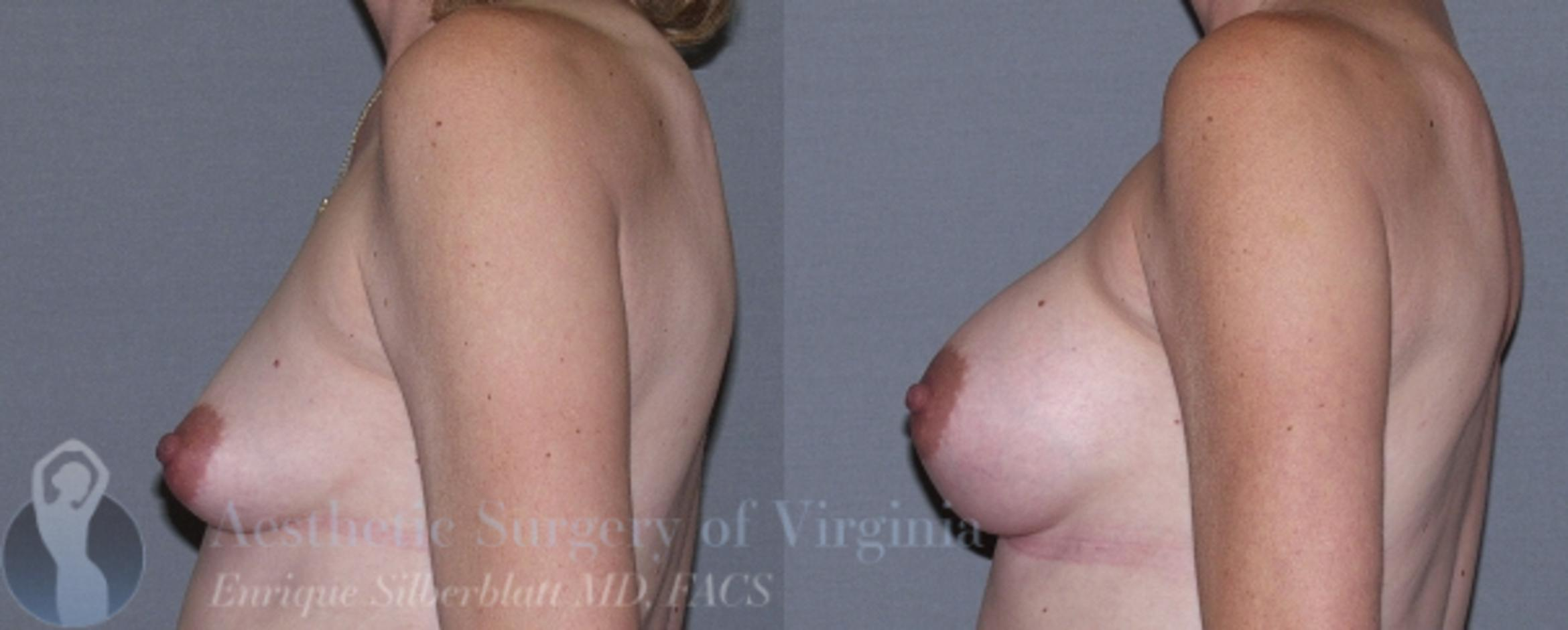 Breast Augmentation Case 12 Before & After View #3 | Roanoke, VA | Aesthetic Surgery of Virginia: Enrique Silberblatt, MD