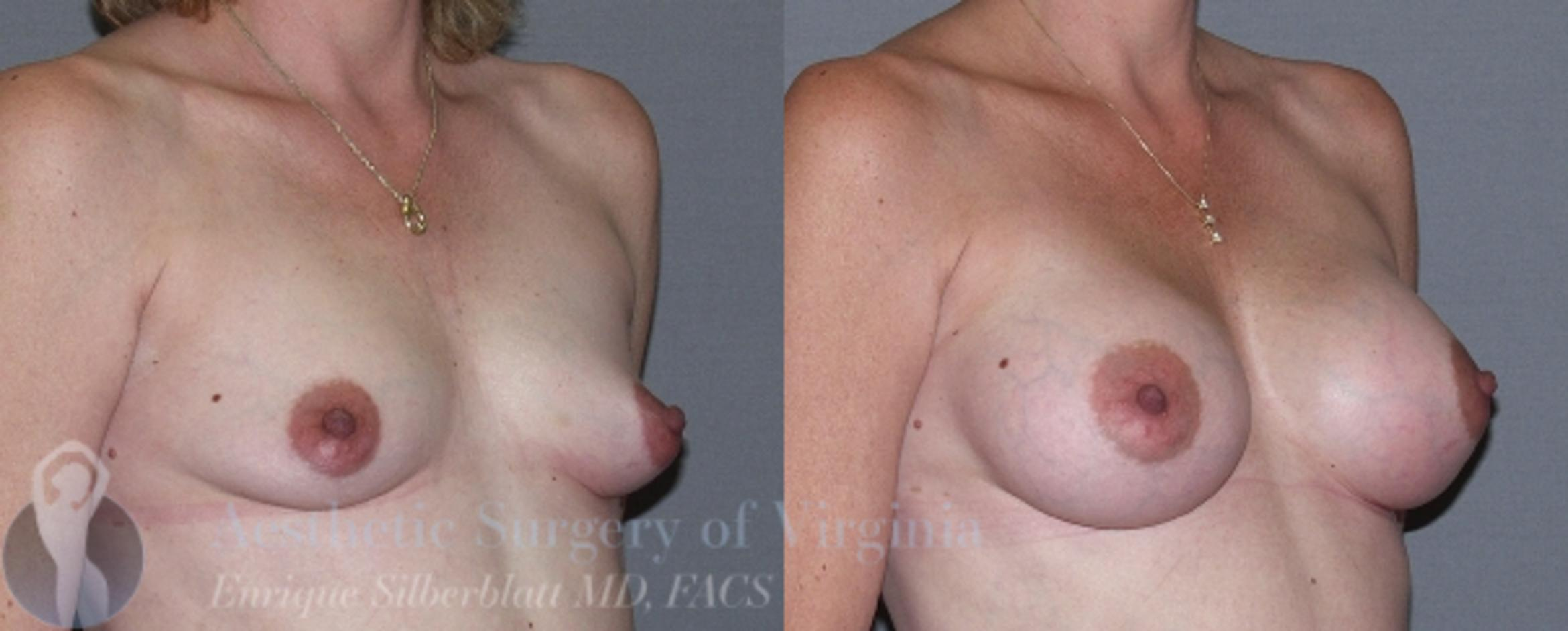 Breast Augmentation Case 12 Before & After View #4 | Roanoke, VA | Aesthetic Surgery of Virginia: Enrique Silberblatt, MD
