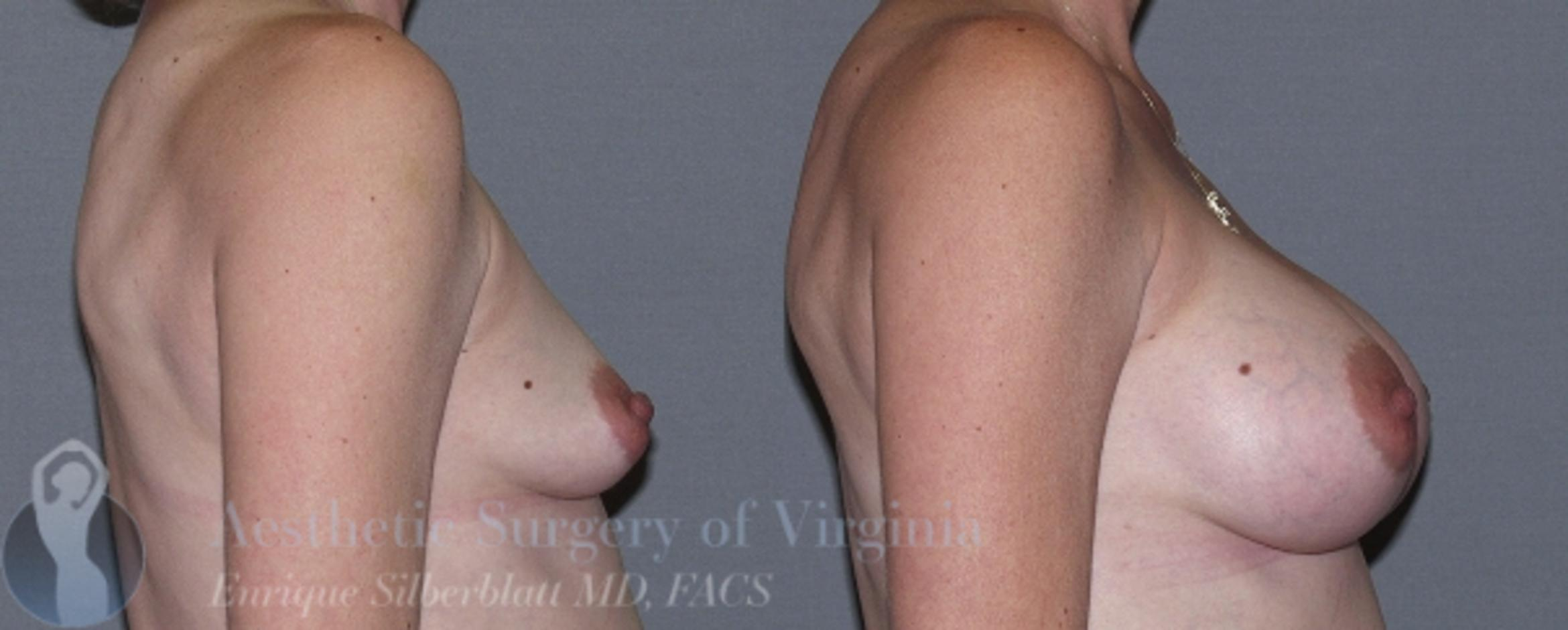Breast Augmentation Case 12 Before & After View #5 | Roanoke, VA | Aesthetic Surgery of Virginia: Enrique Silberblatt, MD