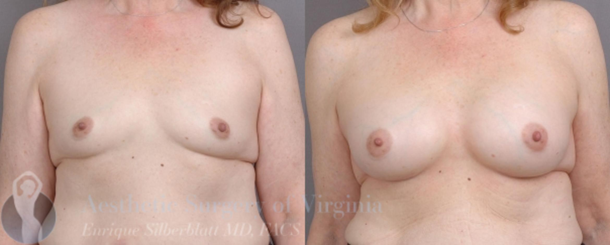 Breast Augmentation Case 16 Before & After View #1 | Roanoke, VA | Aesthetic Surgery of Virginia: Enrique Silberblatt, MD