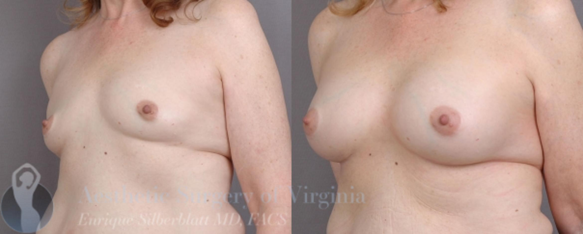 Breast Augmentation Case 16 Before & After View #2 | Roanoke, VA | Aesthetic Surgery of Virginia: Enrique Silberblatt, MD