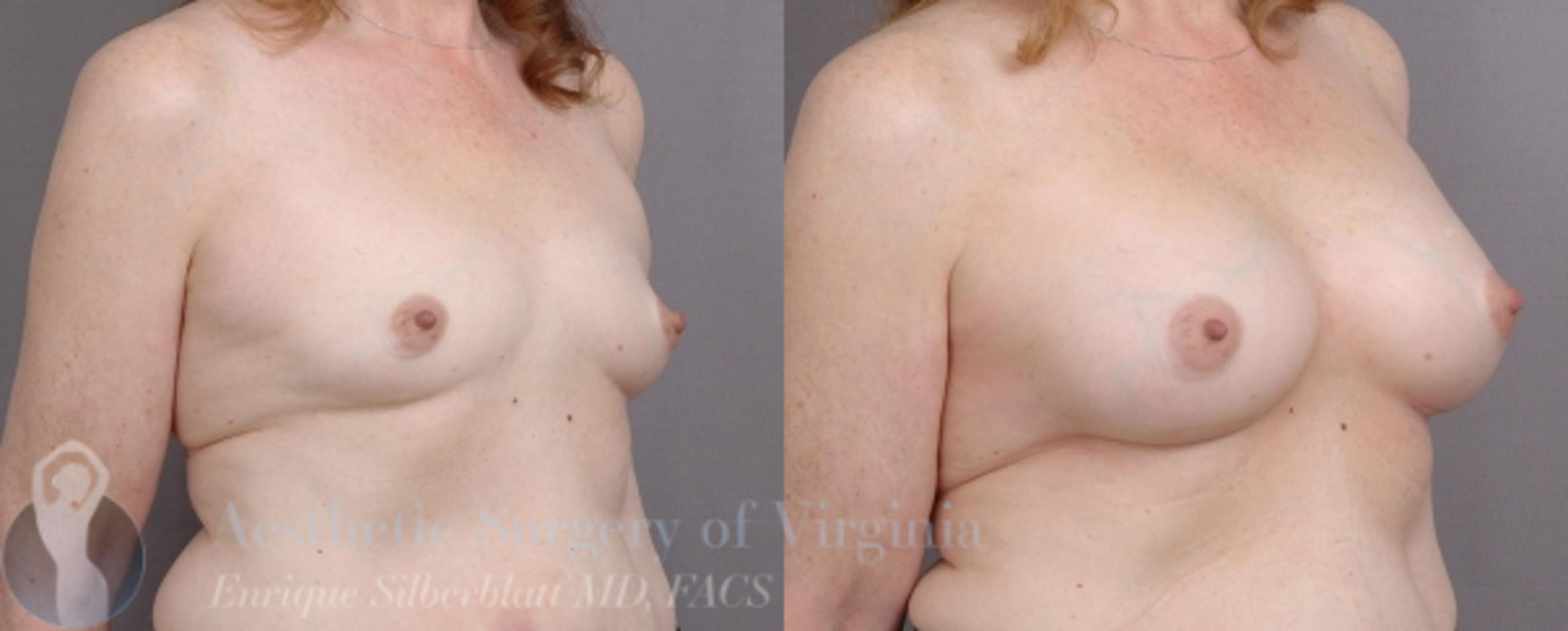 Breast Augmentation Case 16 Before & After View #3 | Roanoke, VA | Aesthetic Surgery of Virginia: Enrique Silberblatt, MD