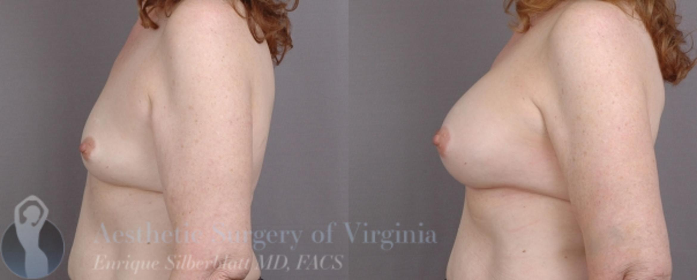 Breast Augmentation Case 16 Before & After View #4 | Roanoke, VA | Aesthetic Surgery of Virginia: Enrique Silberblatt, MD