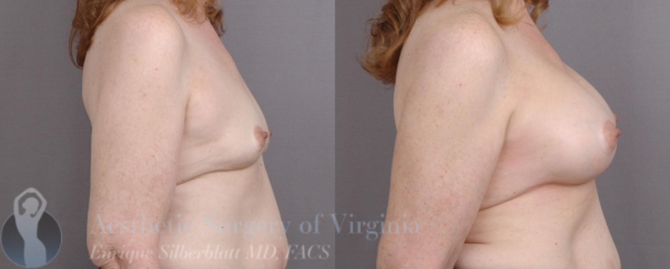 Breast Augmentation Case 16 Before & After View #5 | Roanoke, VA | Aesthetic Surgery of Virginia: Enrique Silberblatt, MD