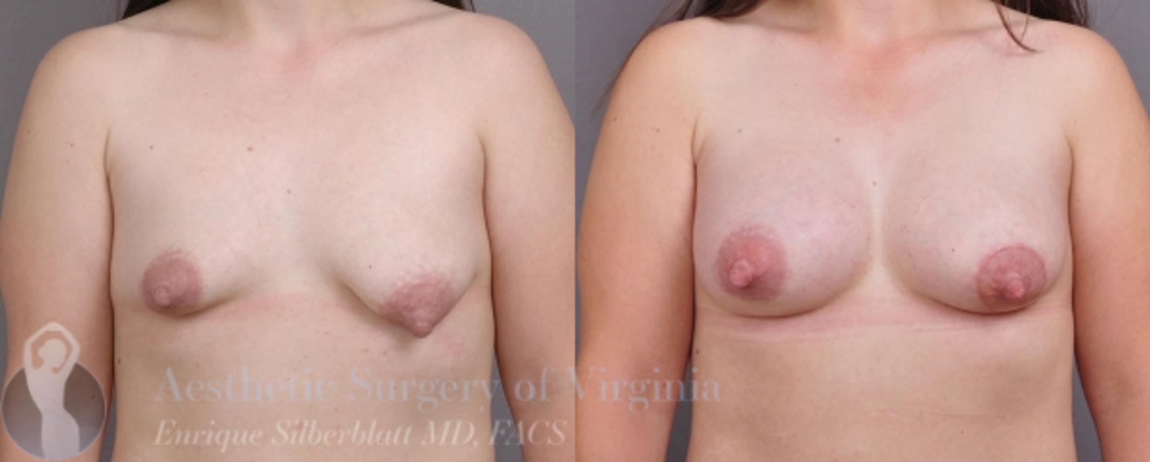Breast Augmentation Case 17 Before & After View #1 | Roanoke, VA | Aesthetic Surgery of Virginia: Enrique Silberblatt, MD