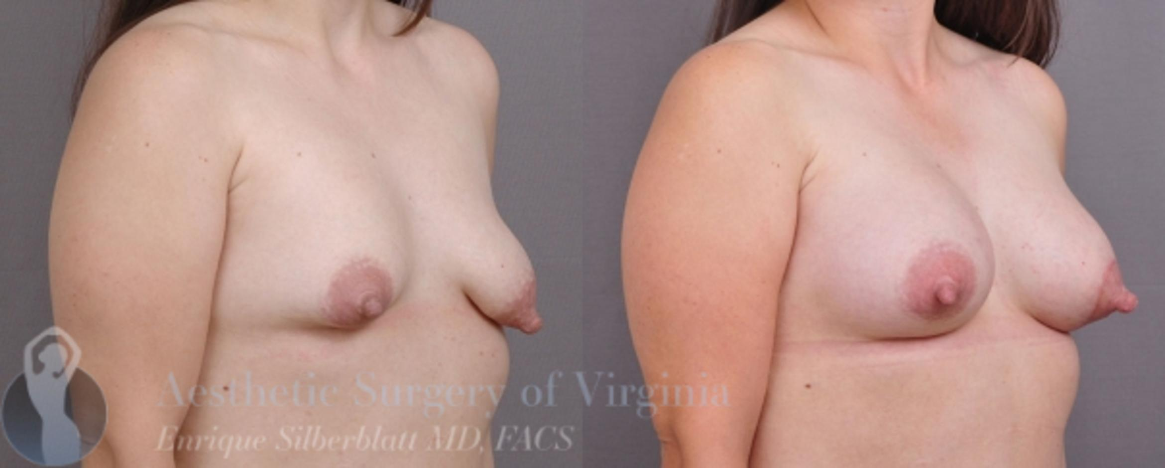 Breast Augmentation Case 17 Before & After View #3 | Roanoke, VA | Aesthetic Surgery of Virginia: Enrique Silberblatt, MD