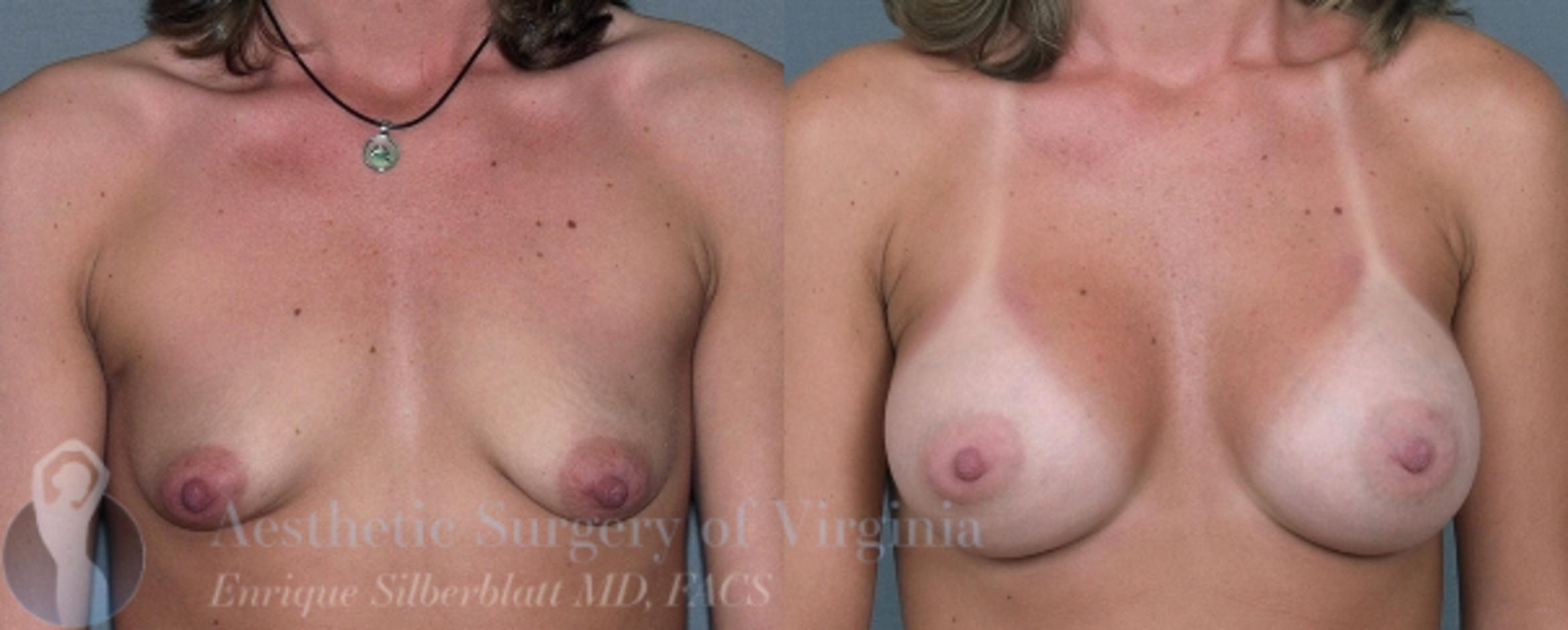 Breast Augmentation Case 4 Before & After View #1 | Roanoke, VA | Aesthetic Surgery of Virginia: Enrique Silberblatt, MD