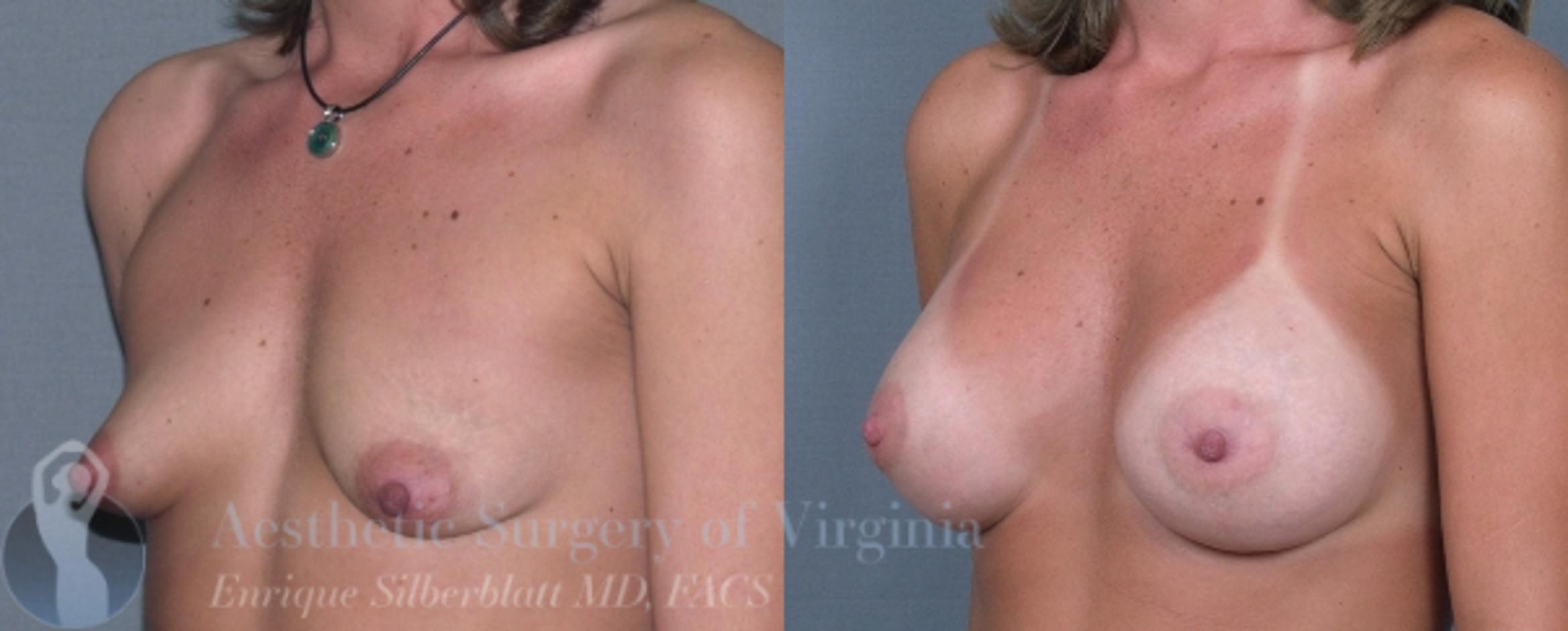 Breast Augmentation Case 4 Before & After View #2 | Roanoke, VA | Aesthetic Surgery of Virginia: Enrique Silberblatt, MD