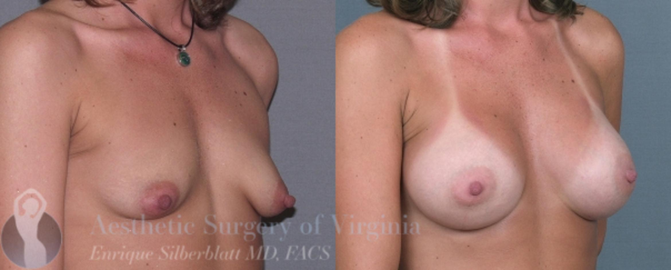 Breast Augmentation Case 4 Before & After View #3 | Roanoke, VA | Aesthetic Surgery of Virginia: Enrique Silberblatt, MD