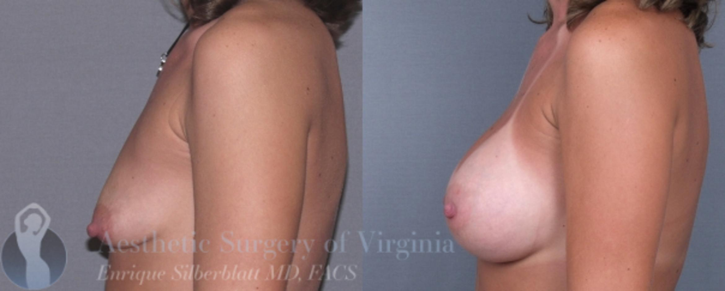 Breast Augmentation Case 4 Before & After View #4 | Roanoke, VA | Aesthetic Surgery of Virginia: Enrique Silberblatt, MD