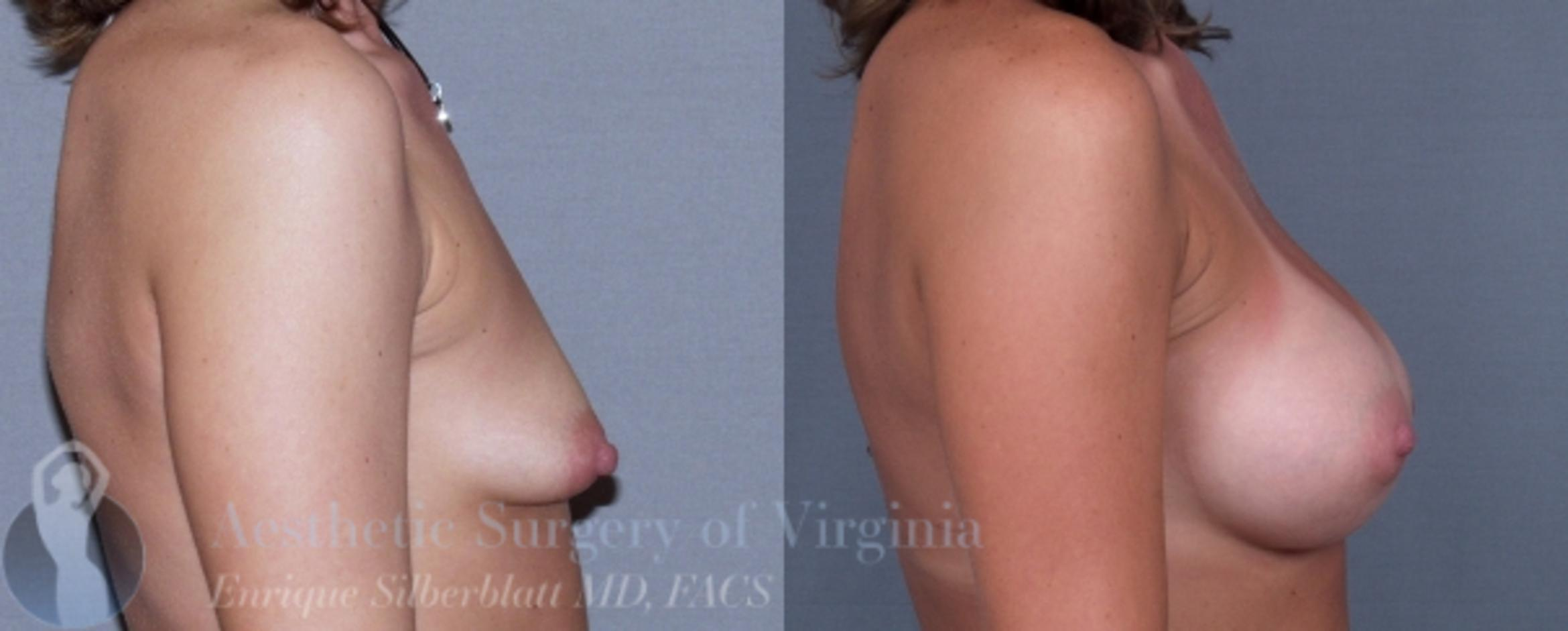 Breast Augmentation Case 4 Before & After View #5 | Roanoke, VA | Aesthetic Surgery of Virginia: Enrique Silberblatt, MD