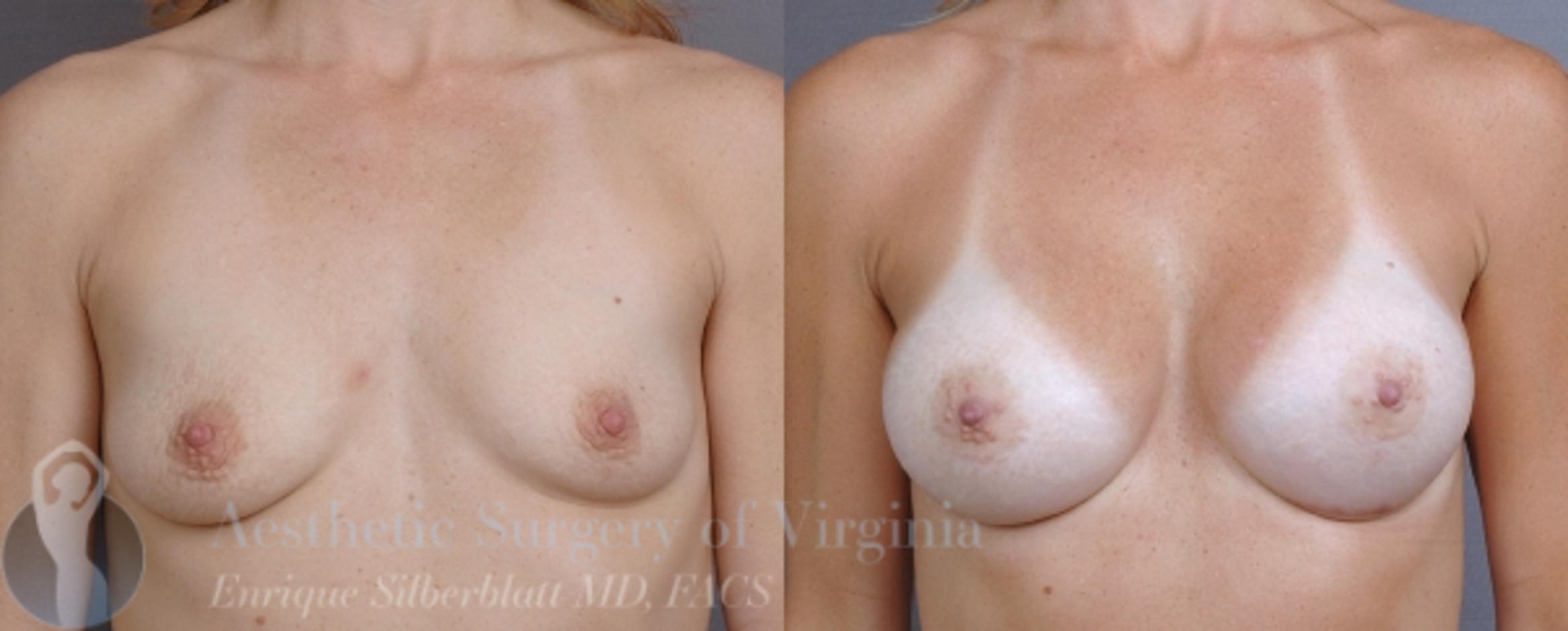 Breast Augmentation Case 5 Before & After View #1 | Roanoke, VA | Aesthetic Surgery of Virginia: Enrique Silberblatt, MD