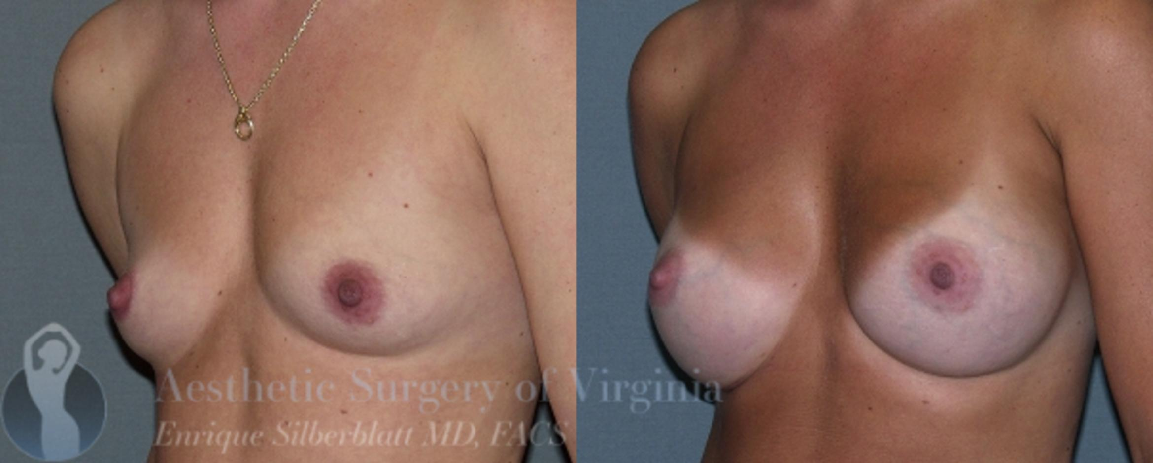 Breast Augmentation Case 6 Before & After View #2 | Roanoke, VA | Aesthetic Surgery of Virginia: Enrique Silberblatt, MD