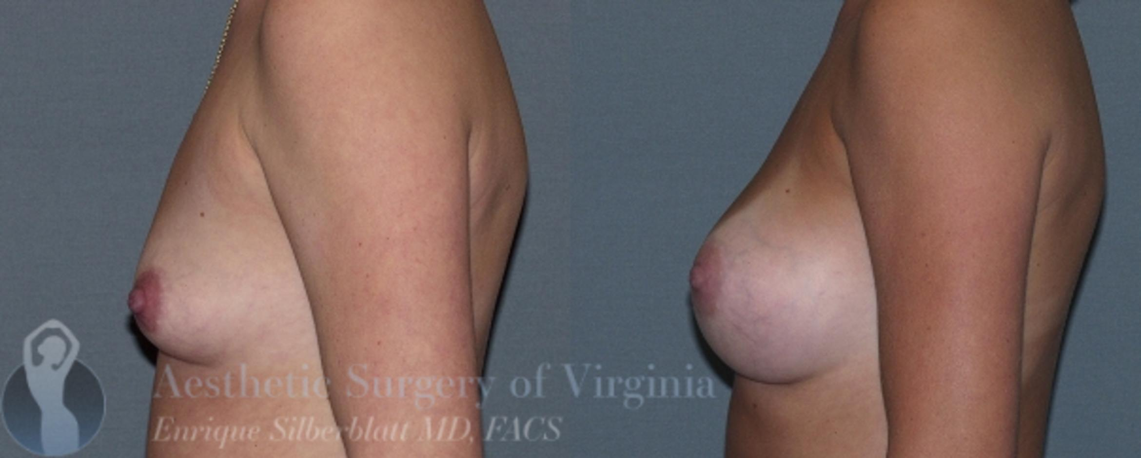 Breast Augmentation Case 6 Before & After View #3 | Roanoke, VA | Aesthetic Surgery of Virginia: Enrique Silberblatt, MD