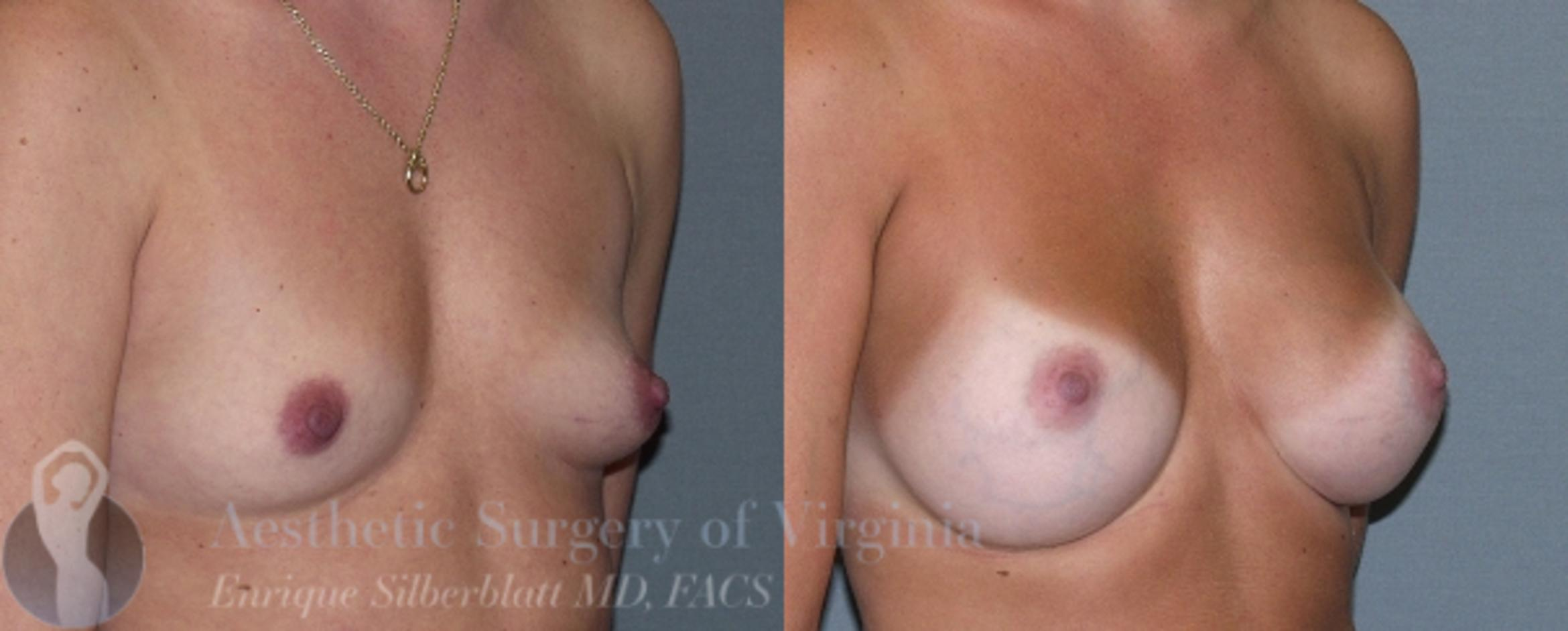 Breast Augmentation Case 6 Before & After View #4 | Roanoke, VA | Aesthetic Surgery of Virginia: Enrique Silberblatt, MD
