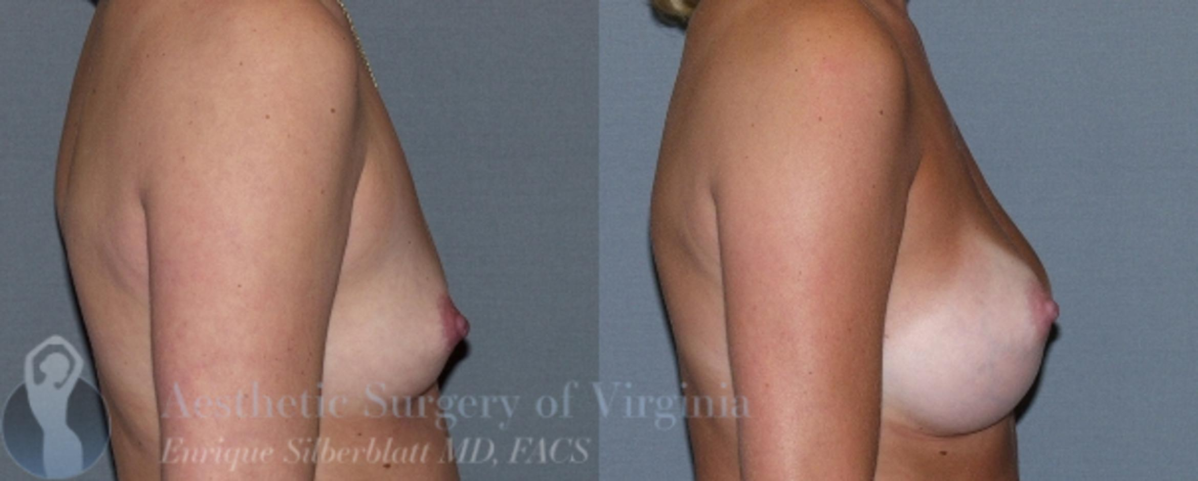 Breast Augmentation Case 6 Before & After View #5 | Roanoke, VA | Aesthetic Surgery of Virginia: Enrique Silberblatt, MD
