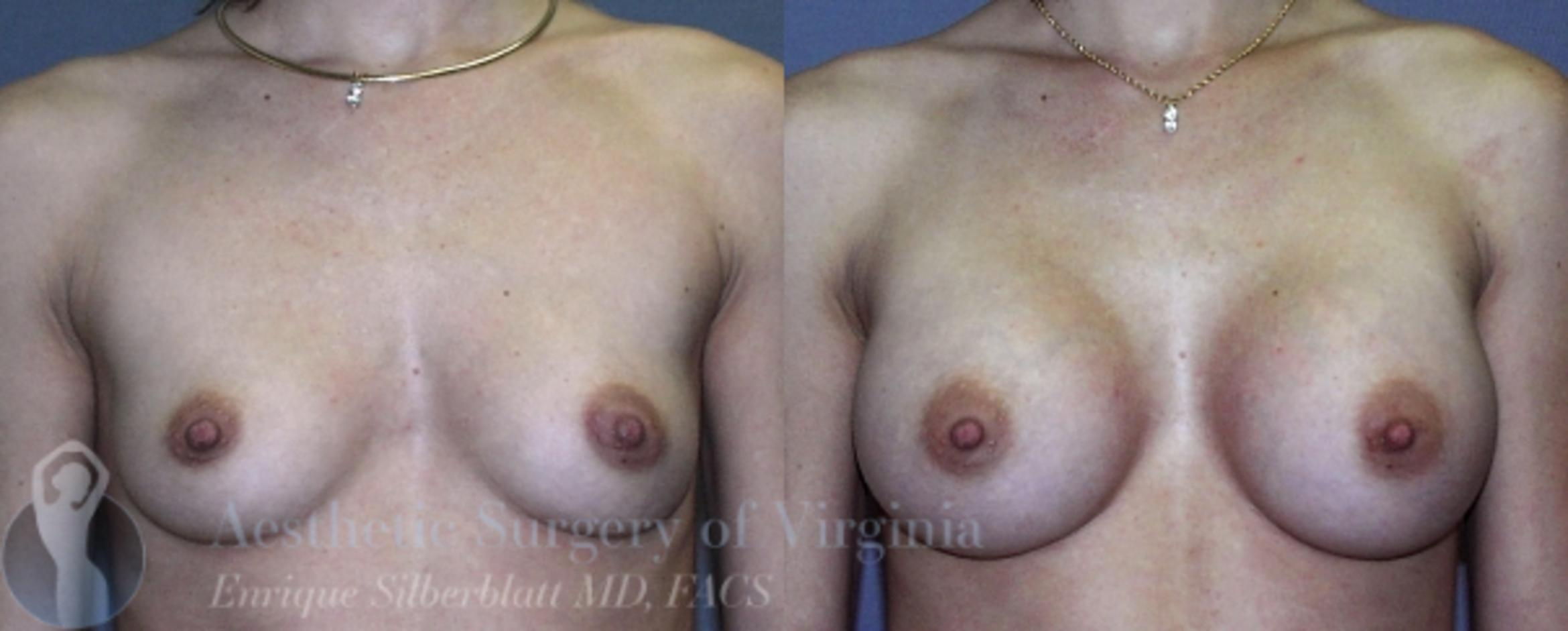 Breast Augmentation Case 7 Before & After View #1 | Roanoke, VA | Aesthetic Surgery of Virginia: Enrique Silberblatt, MD