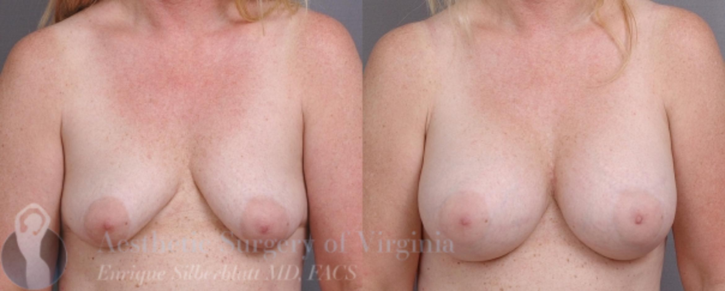 Breast Augmentation Case 9 Before & After View #1 | Roanoke, VA | Aesthetic Surgery of Virginia: Enrique Silberblatt, MD
