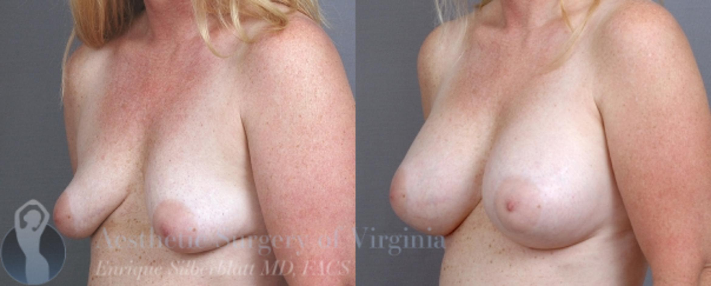 Breast Augmentation Case 9 Before & After View #2 | Roanoke, VA | Aesthetic Surgery of Virginia: Enrique Silberblatt, MD