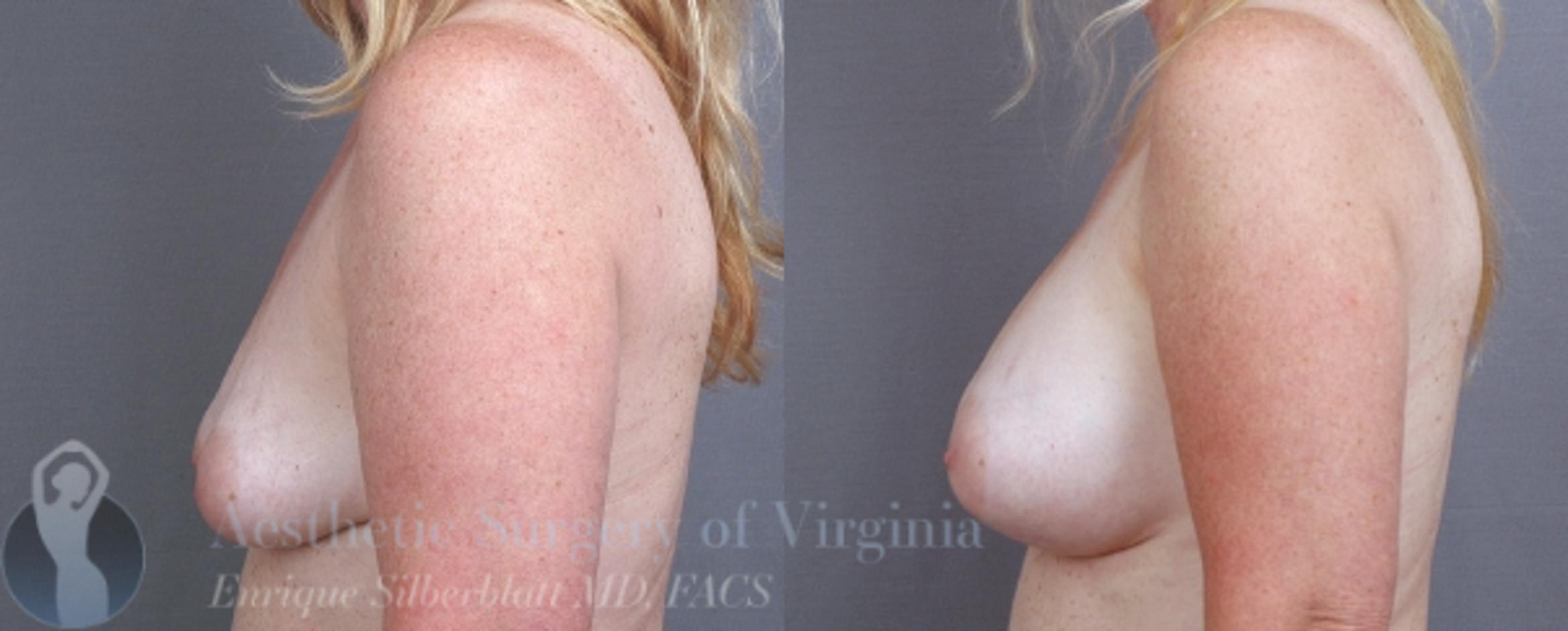 Breast Augmentation Case 9 Before & After View #3 | Roanoke, VA | Aesthetic Surgery of Virginia: Enrique Silberblatt, MD