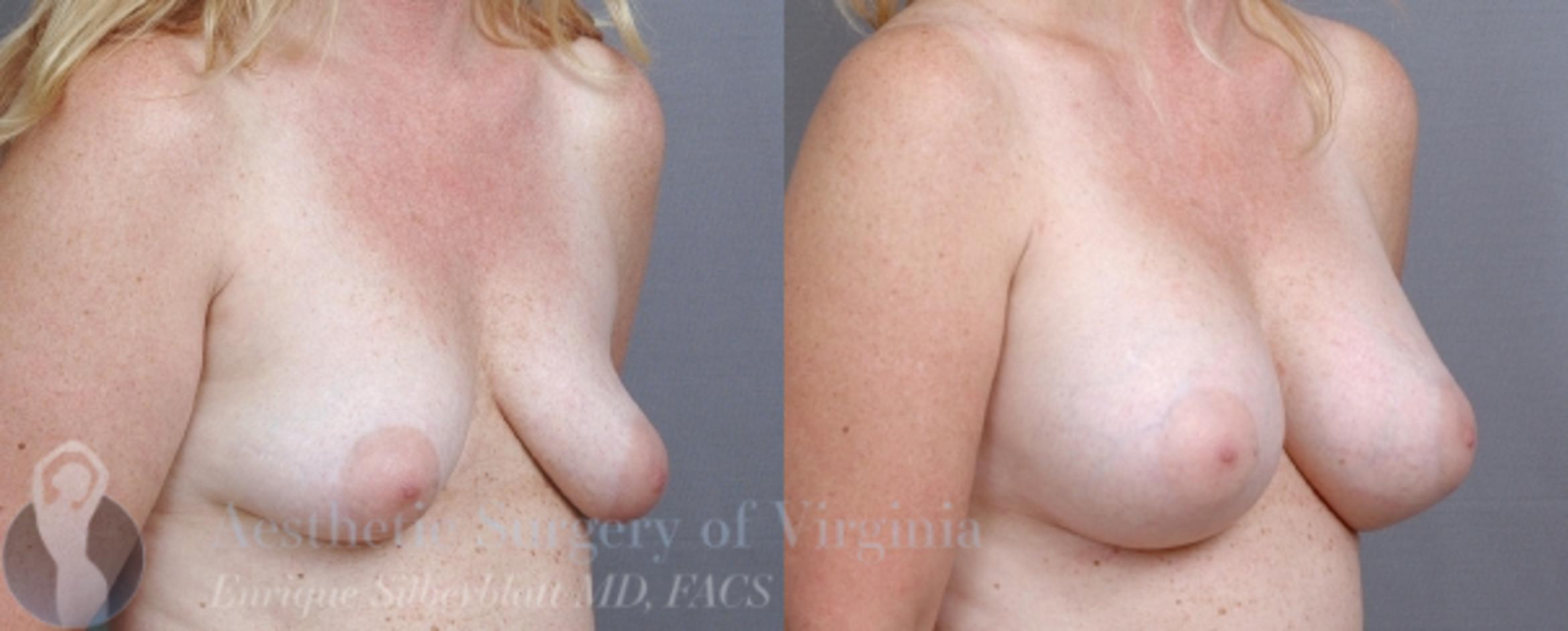 Breast Augmentation Case 9 Before & After View #4 | Roanoke, VA | Aesthetic Surgery of Virginia: Enrique Silberblatt, MD