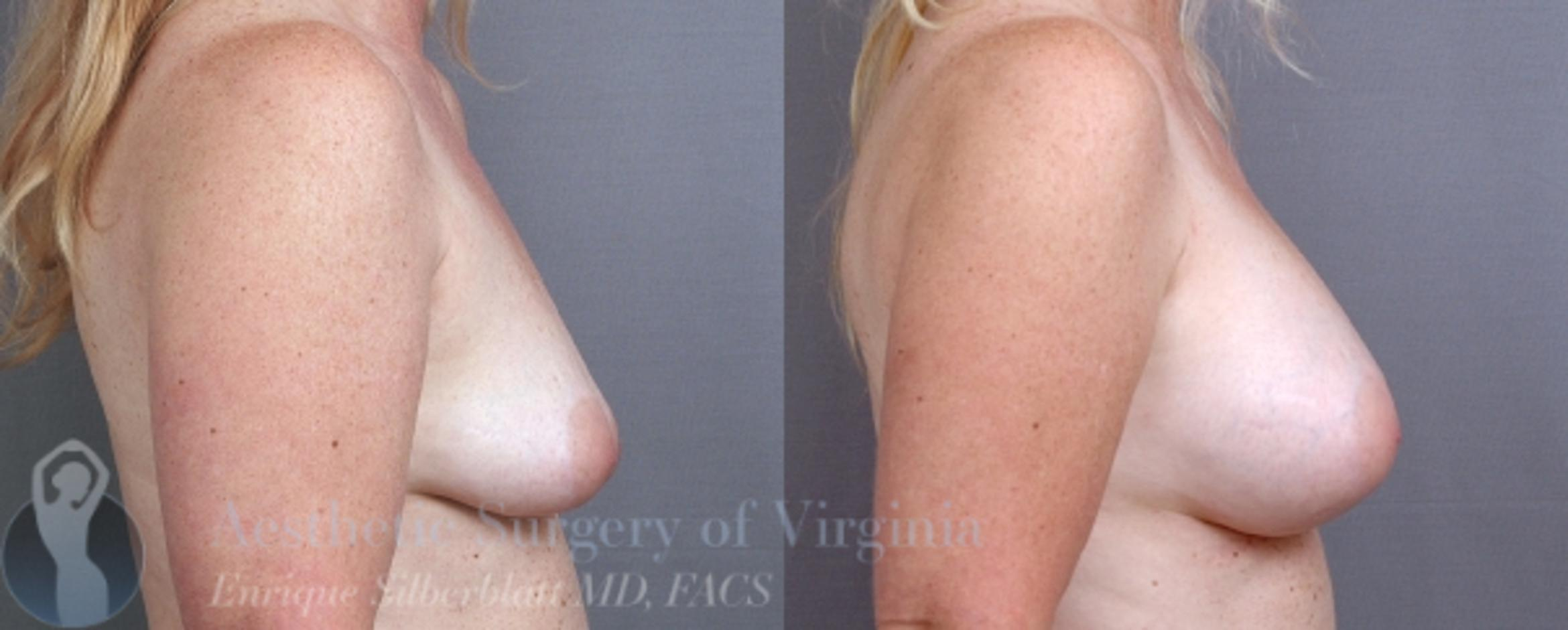 Breast Augmentation Case 9 Before & After View #5 | Roanoke, VA | Aesthetic Surgery of Virginia: Enrique Silberblatt, MD