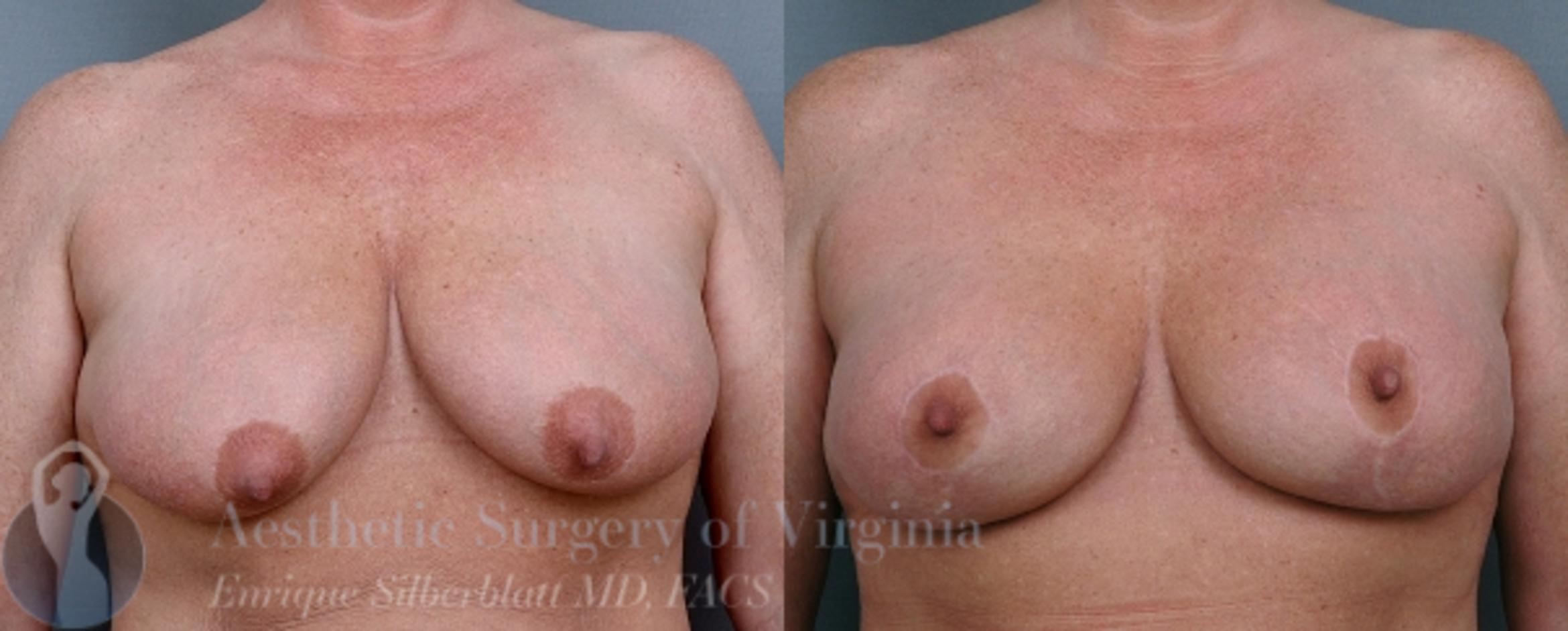 Breast Lift Case 20 Before & After View #1 | Roanoke, VA | Aesthetic Surgery of Virginia: Enrique Silberblatt, MD