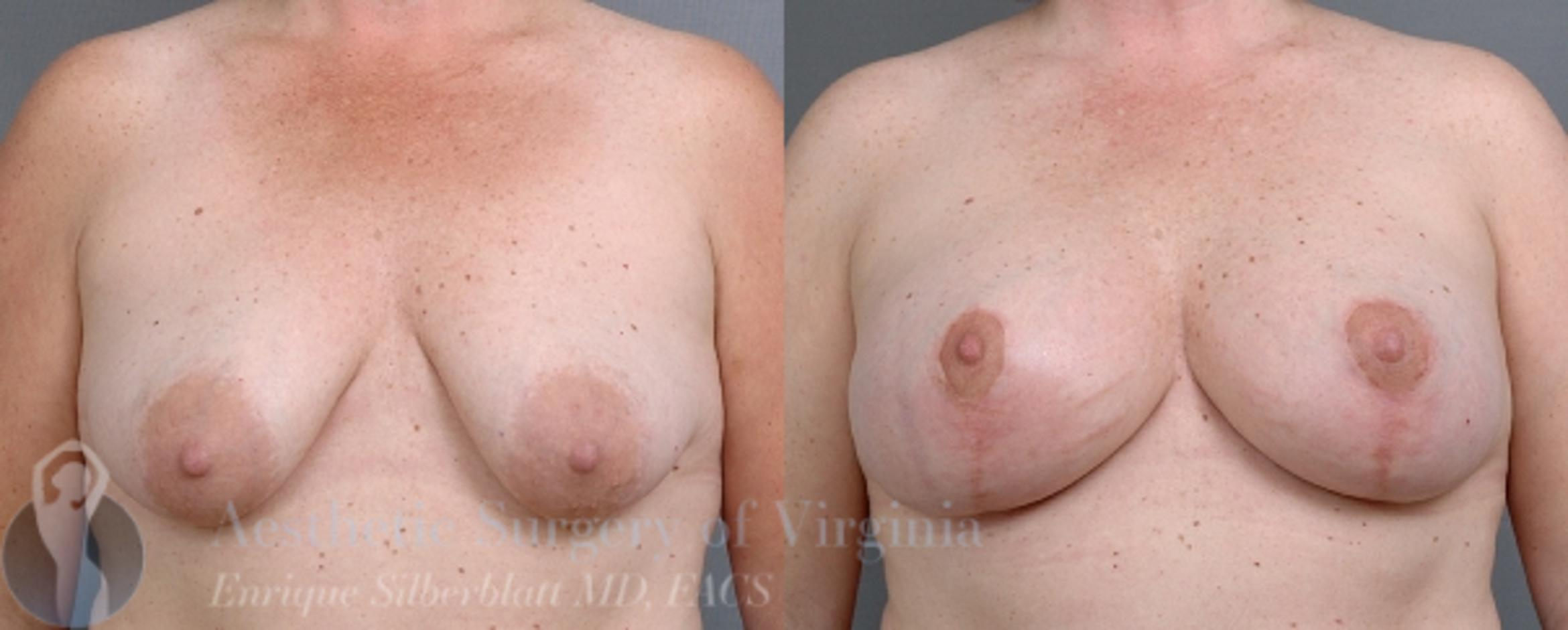 Breast Lift Case 21 Before & After View #1 | Roanoke, VA | Aesthetic Surgery of Virginia: Enrique Silberblatt, MD
