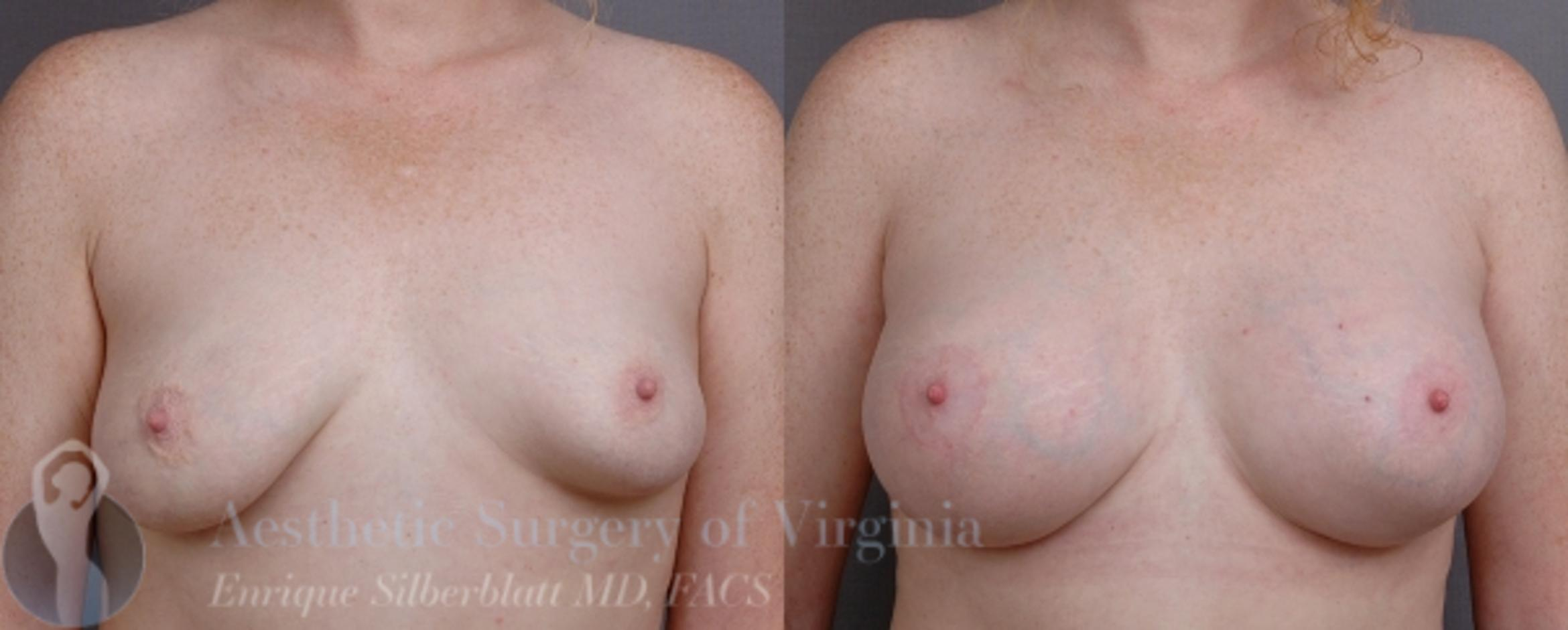 Breast Lift with Implants Case 19 Before & After View #1 | Roanoke, VA | Aesthetic Surgery of Virginia: Enrique Silberblatt, MD