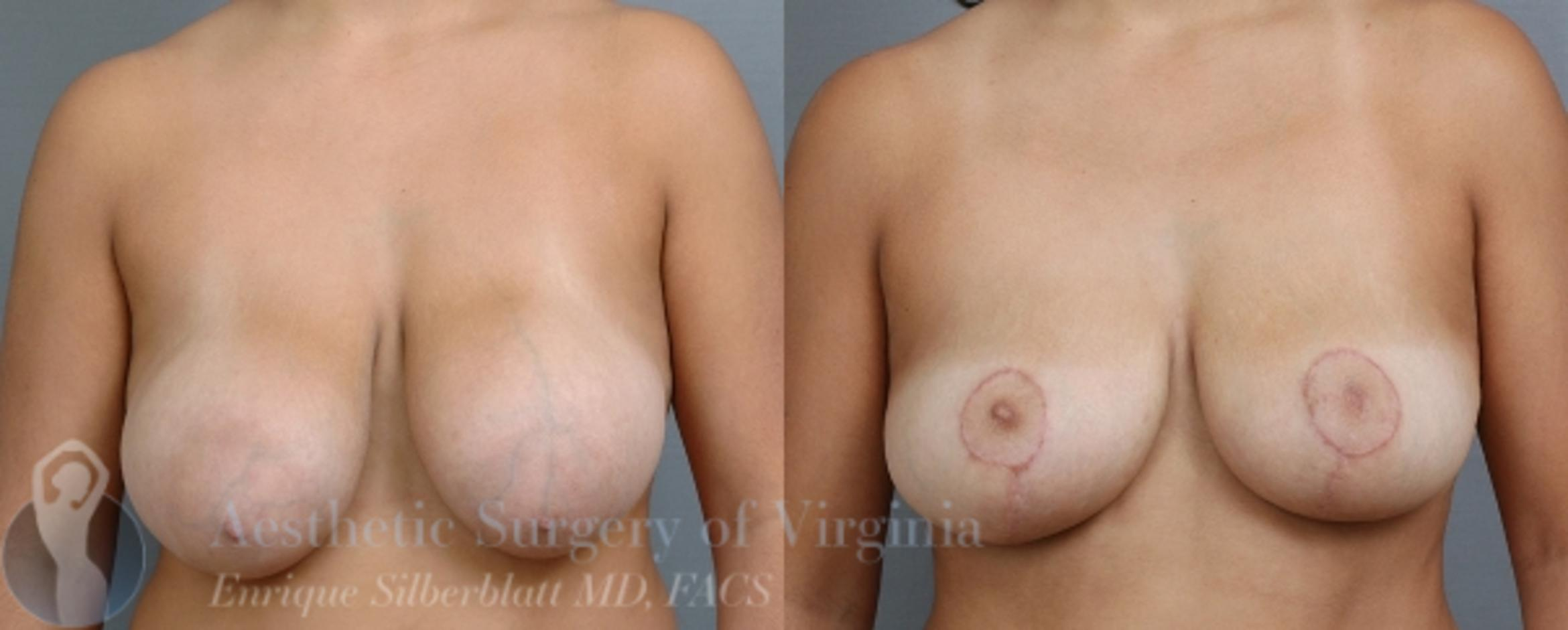 Breast Reduction Case 22 Before & After View #1 | Roanoke, VA | Aesthetic Surgery of Virginia: Enrique Silberblatt, MD