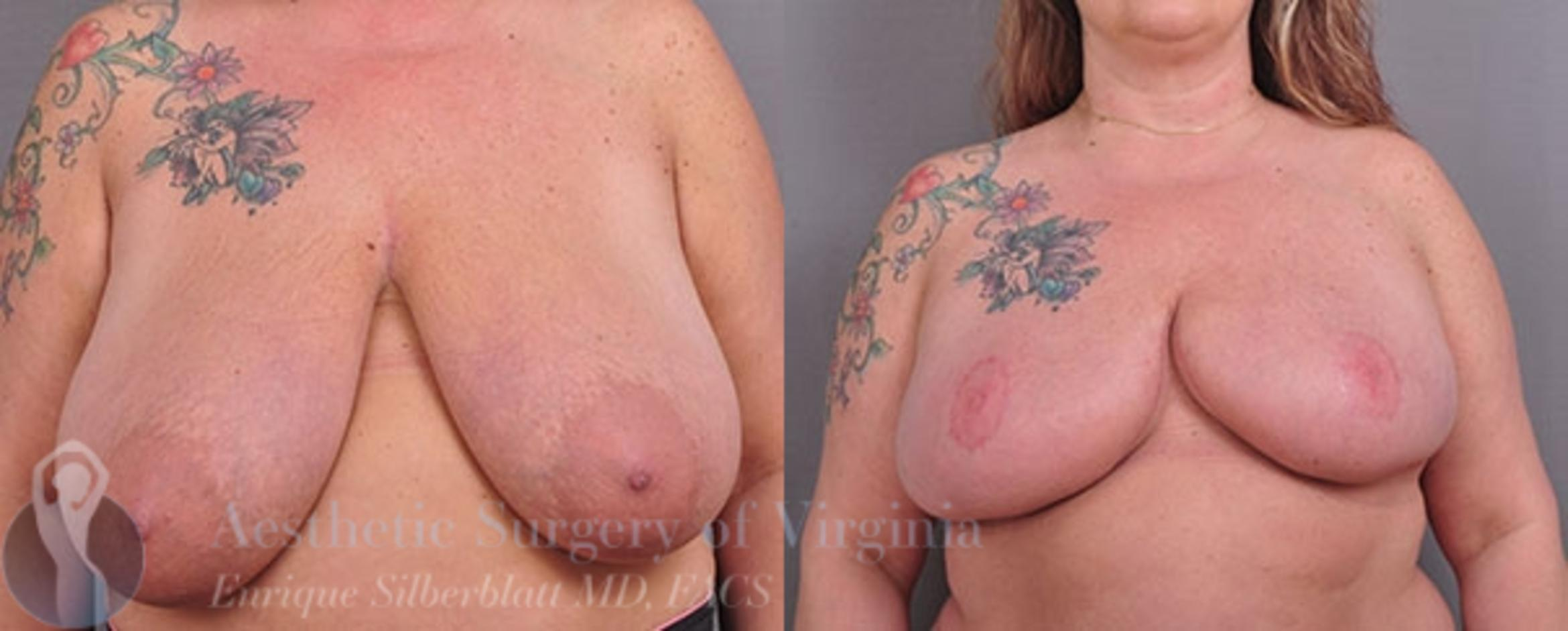 Breast Reduction Case 23 Before & After View #1 | Roanoke, VA | Aesthetic Surgery of Virginia: Enrique Silberblatt, MD