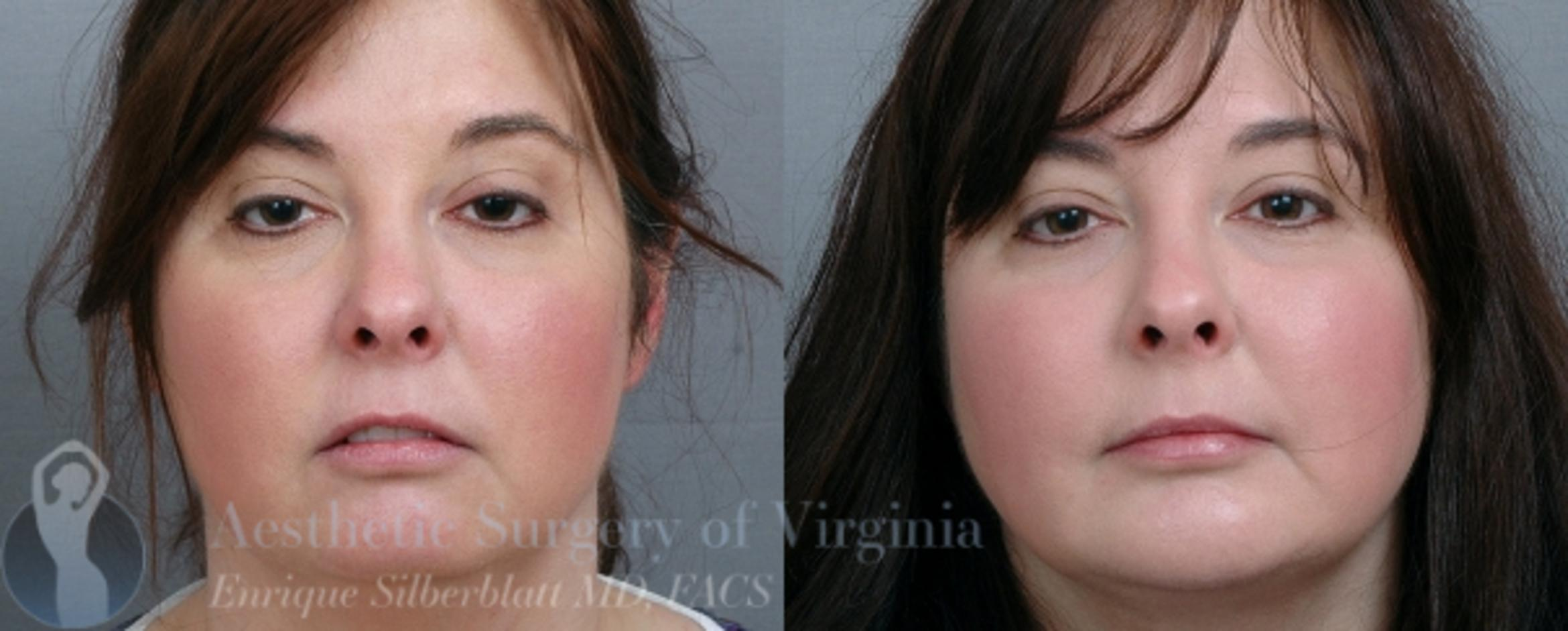 Chin Implant Case 50 Before & After View #1 | Roanoke, VA | Aesthetic Surgery of Virginia: Enrique Silberblatt, MD