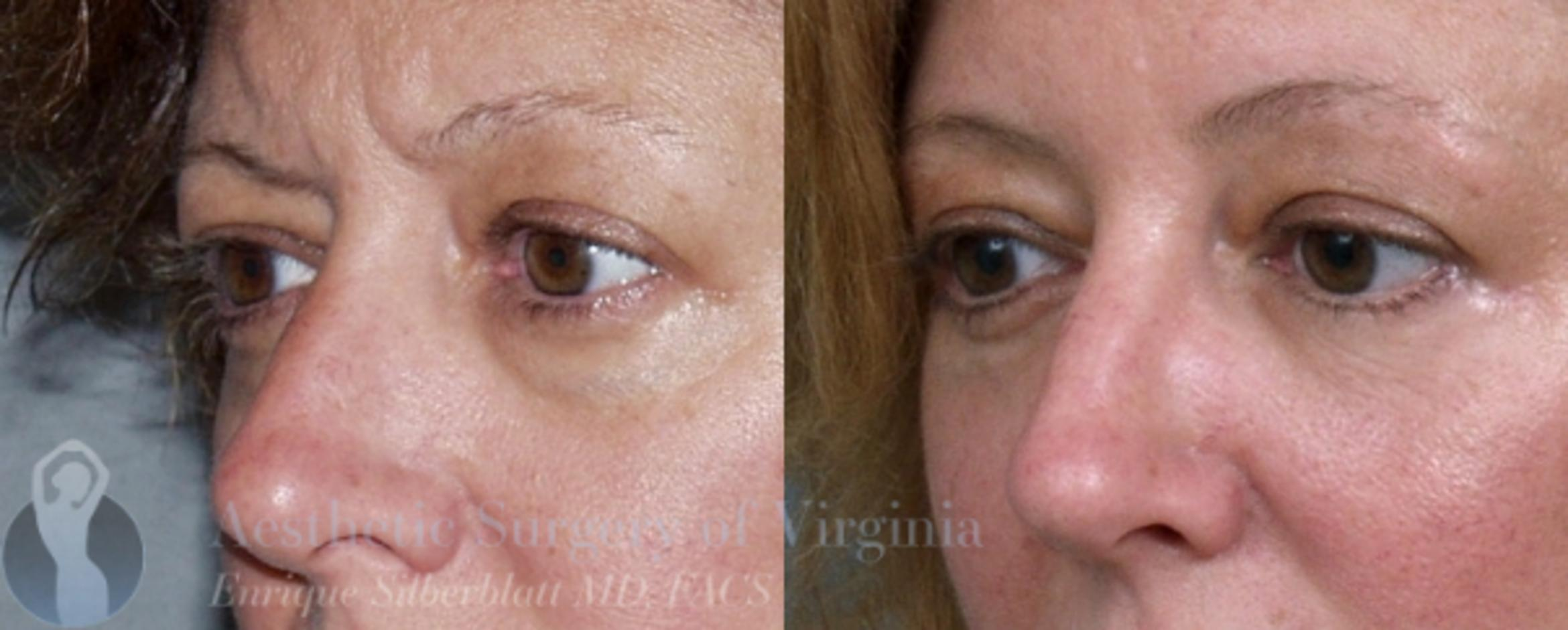 Eyelid Surgery Case 42 Before & After View #2 | Roanoke, VA | Aesthetic Surgery of Virginia: Enrique Silberblatt, MD
