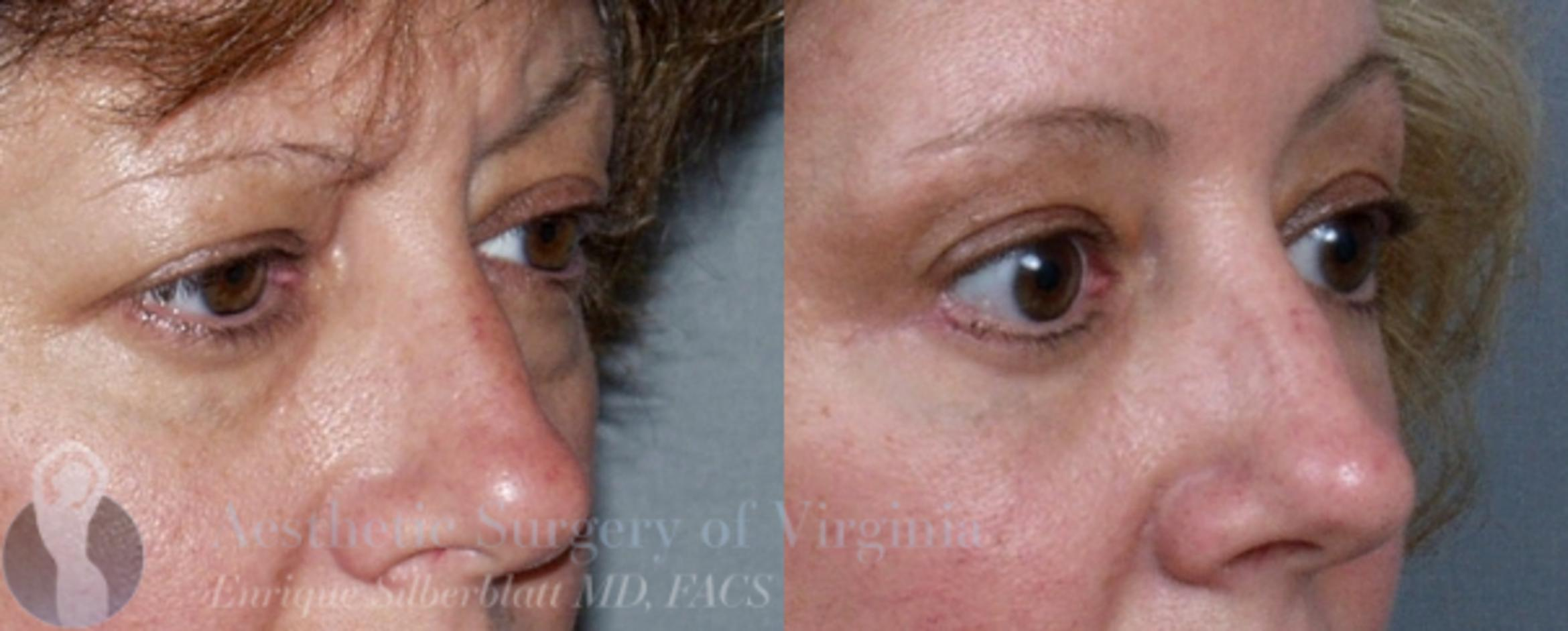 Eyelid Surgery Case 42 Before & After View #3 | Roanoke, VA | Aesthetic Surgery of Virginia: Enrique Silberblatt, MD