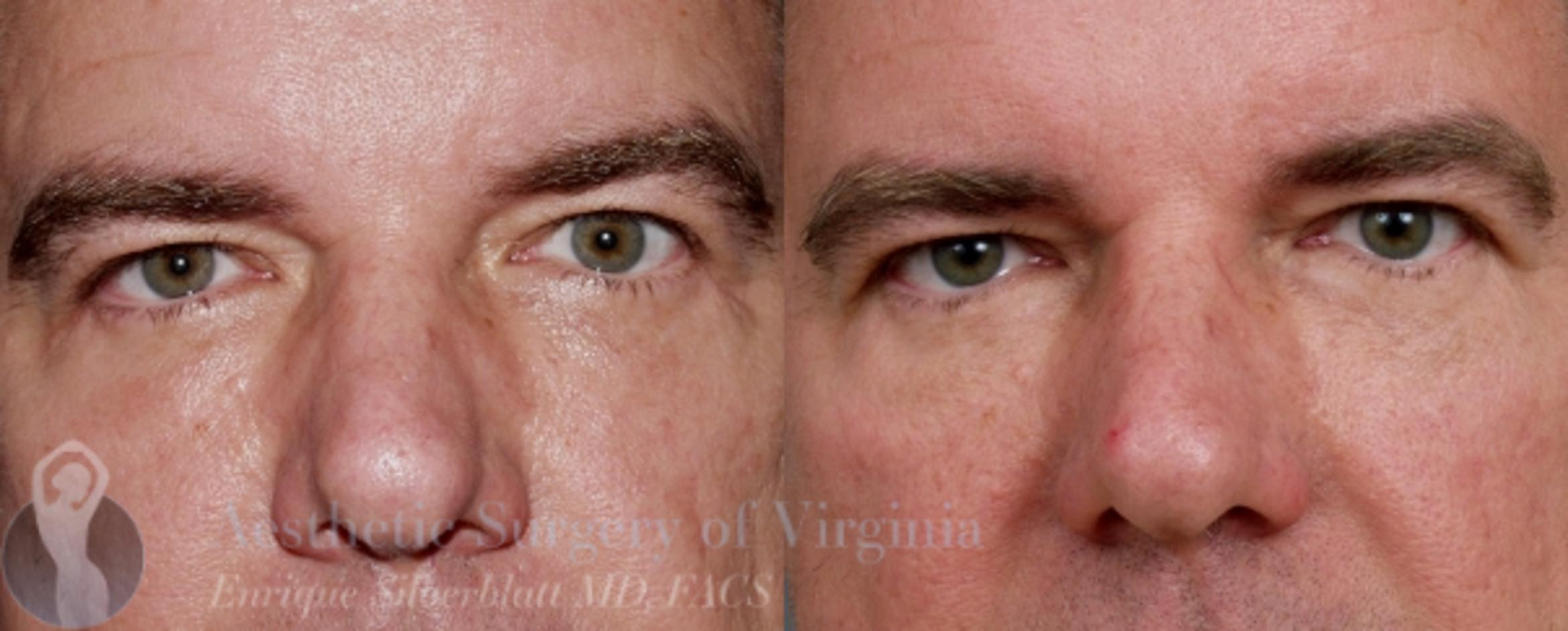 Eyelid Surgery Case 43 Before & After View #1 | Roanoke, VA | Aesthetic Surgery of Virginia: Enrique Silberblatt, MD