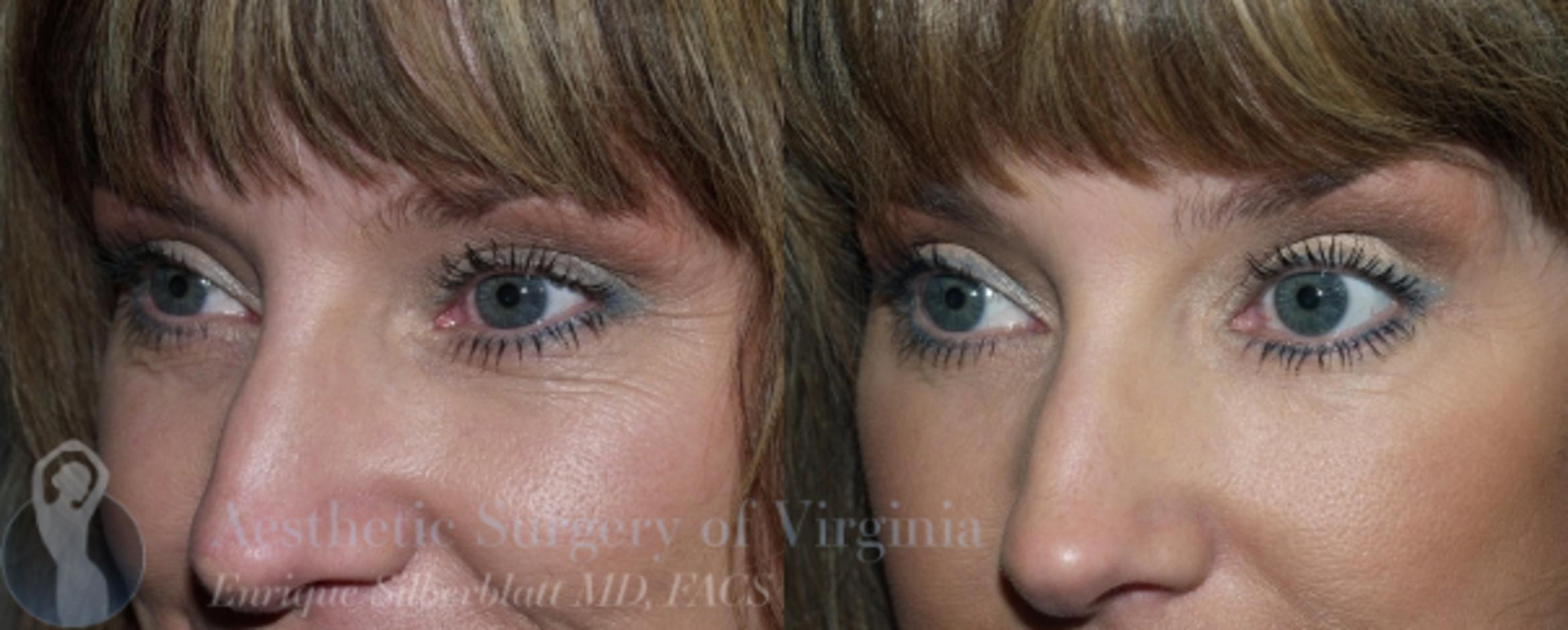 Eyelid Surgery Case 45 Before & After View #2 | Roanoke, VA | Aesthetic Surgery of Virginia: Enrique Silberblatt, MD