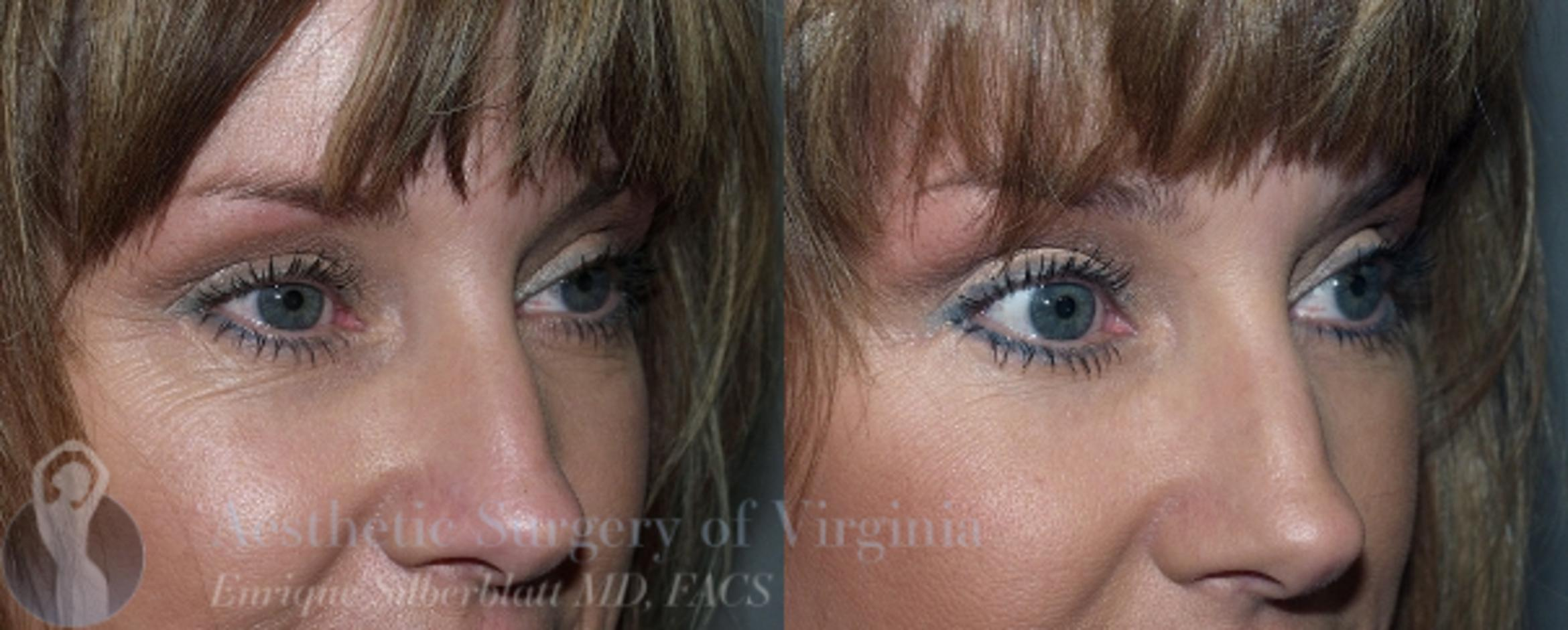 Eyelid Surgery Case 45 Before & After View #3 | Roanoke, VA | Aesthetic Surgery of Virginia: Enrique Silberblatt, MD