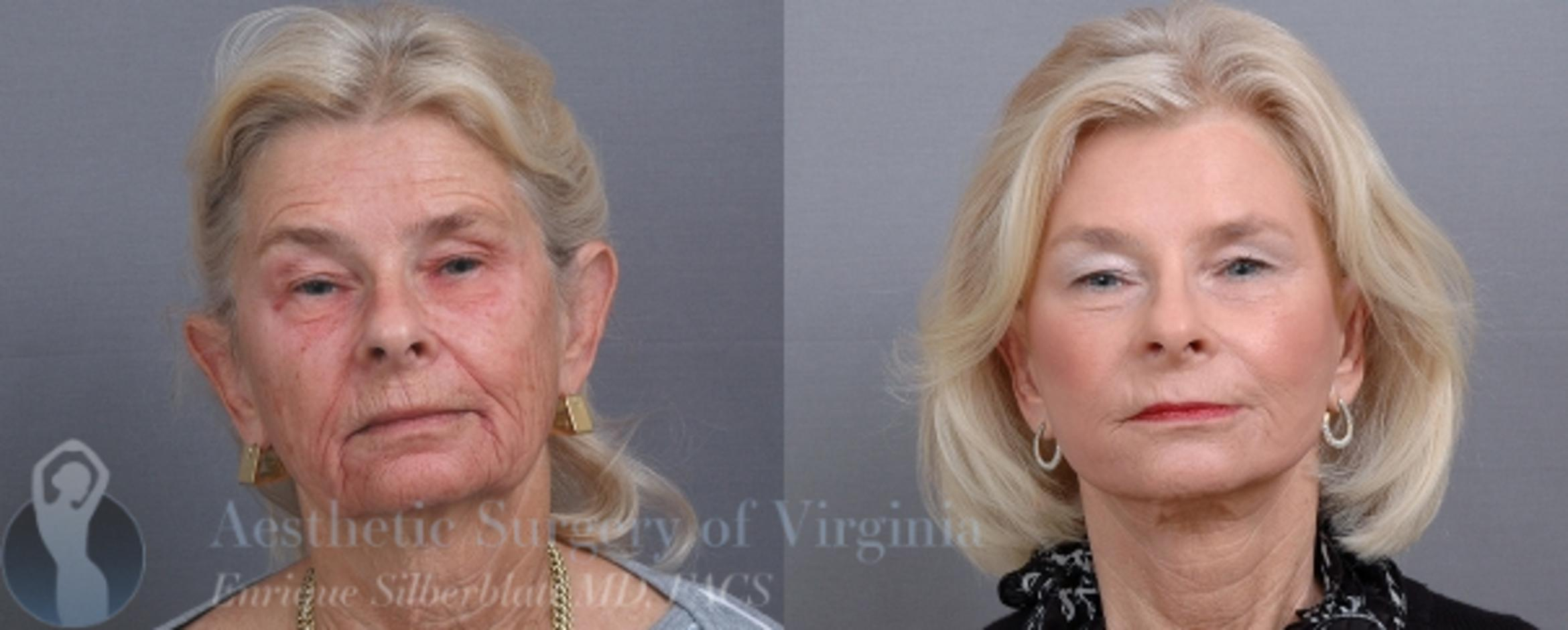 Facelift Case 46 Before & After View #1 | Roanoke, VA | Aesthetic Surgery of Virginia: Enrique Silberblatt, MD