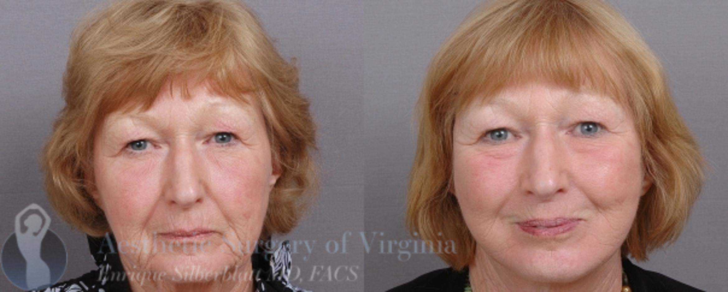 Facelift Case 47 Before & After View #1 | Roanoke, VA | Aesthetic Surgery of Virginia: Enrique Silberblatt, MD